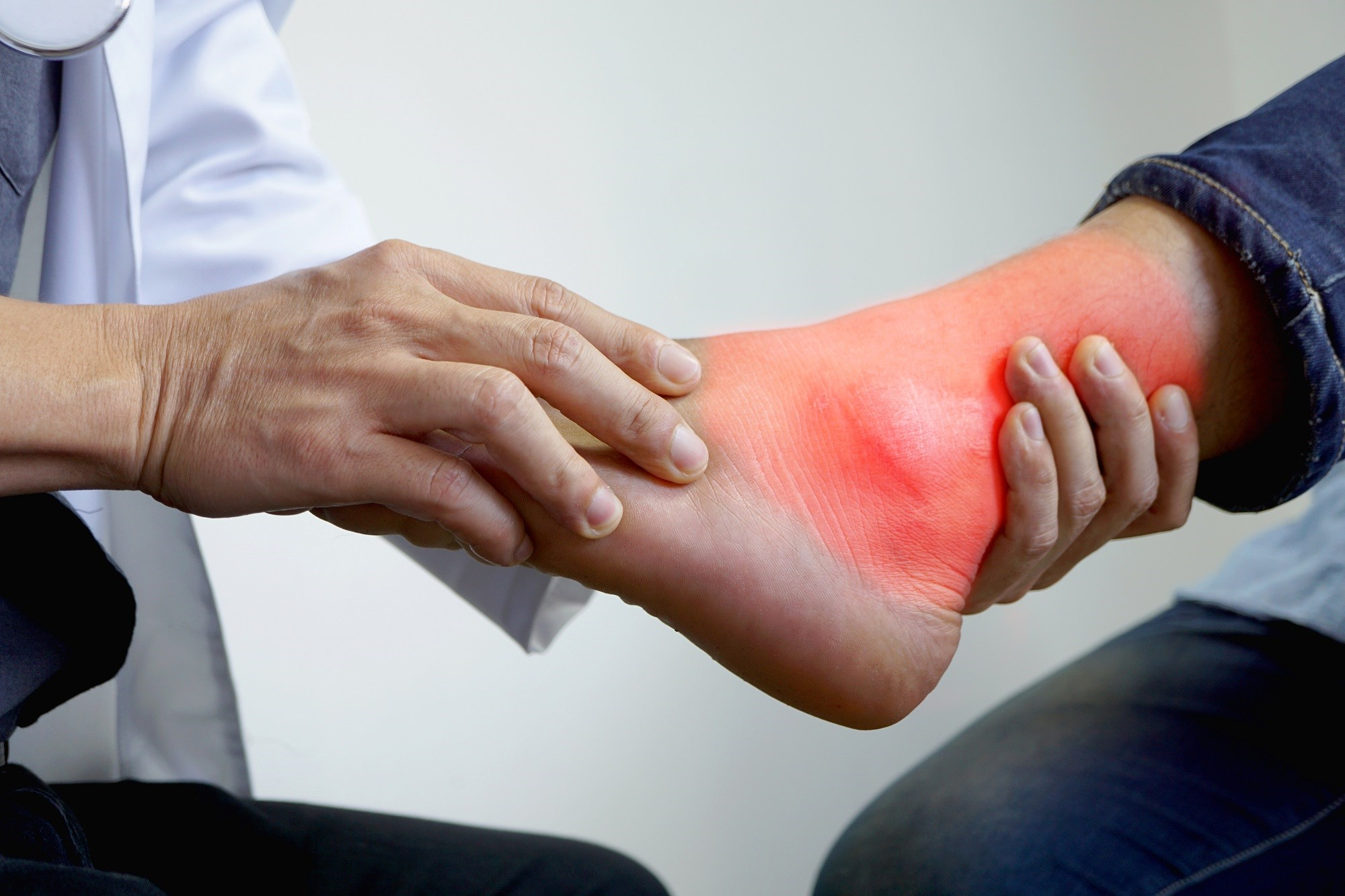 Longer-term studies are needed to support the cost effectiveness and safety of lesinurad in combination with XOI therapy in patients with gout. <i>Image Credit: ISM</i>