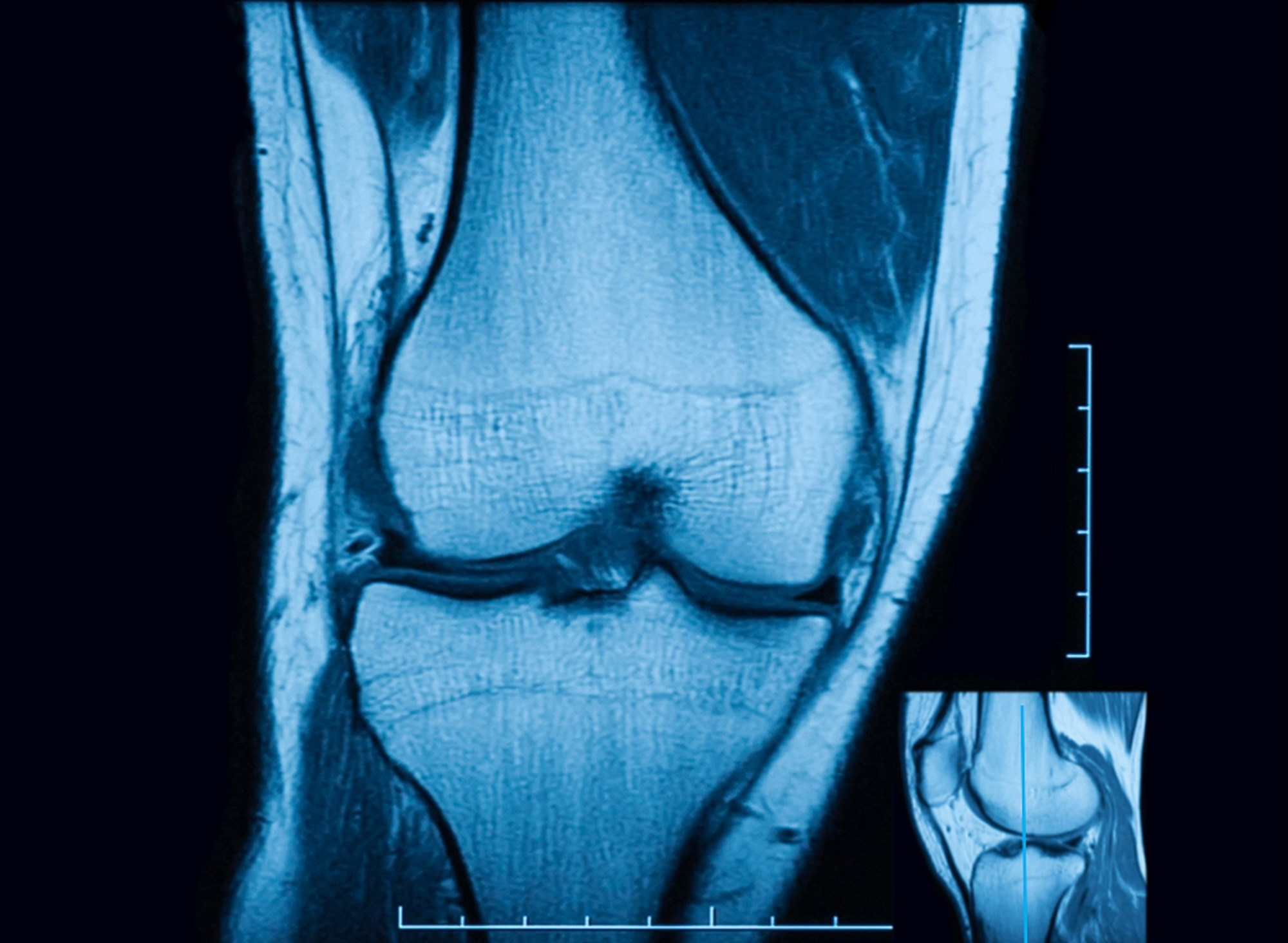 Knee Effusion Volume Predicts Osteoarthritis Progression and Knee Replacement