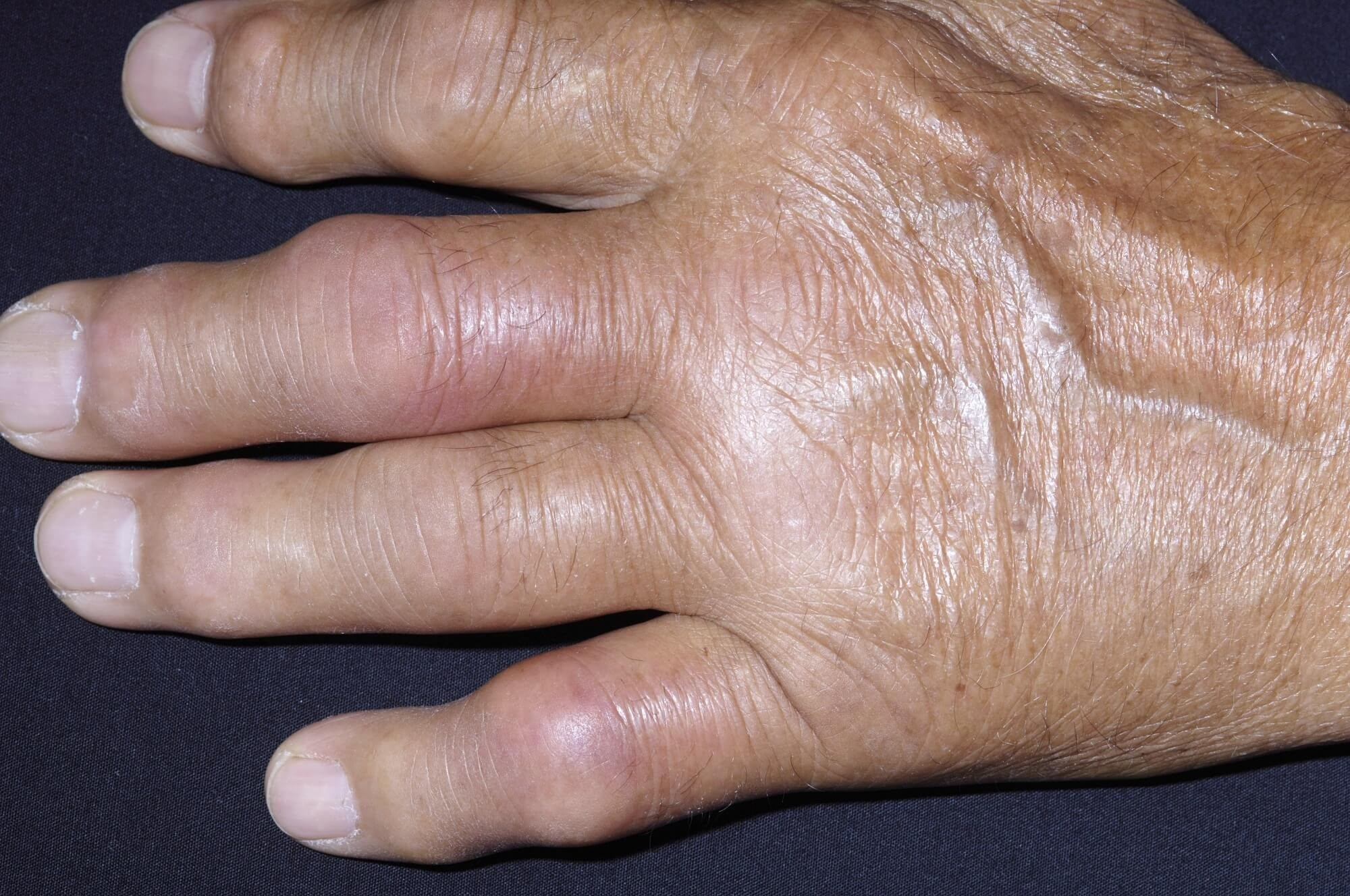 Gout Associated With Psoriatic Arthritis, Psoriasis in Adults