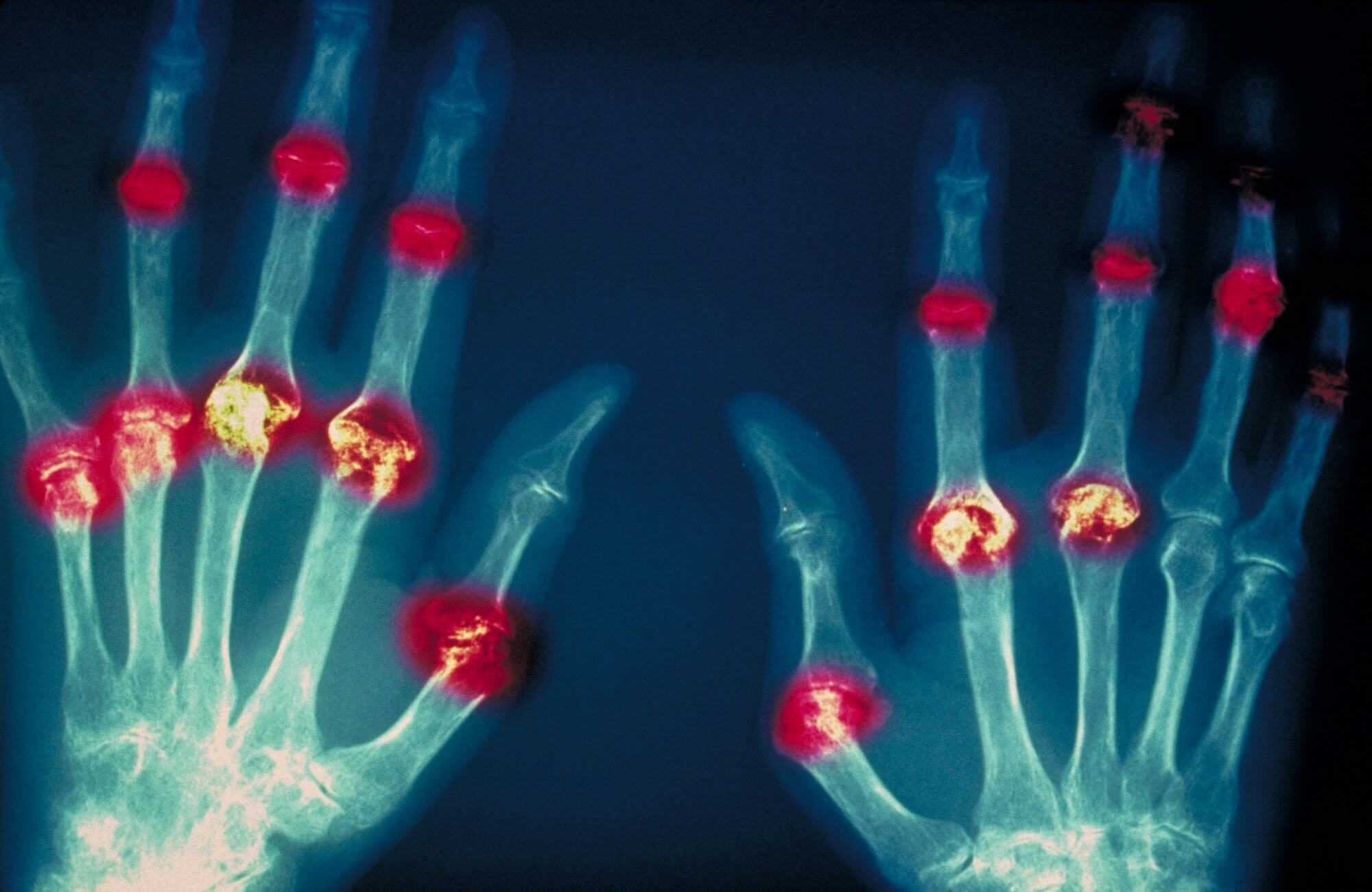 Intra-articular Steroid Injections With Tofacitinib Effective for Early RA With Rapid Radiographic Progression
