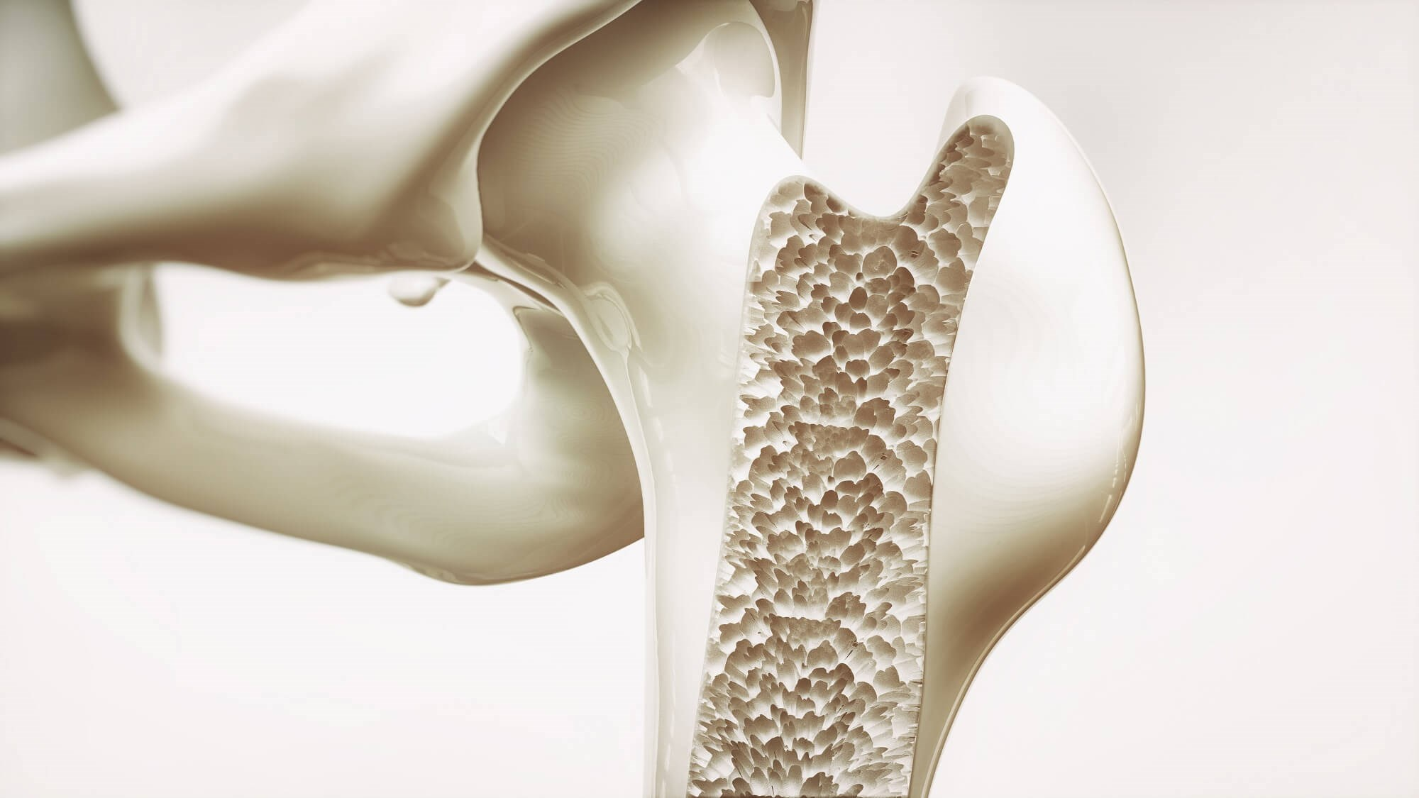 RAAS Inhibitors Do Not Increase Fracture Risk, Osteoporosis in Postmenopausal Women