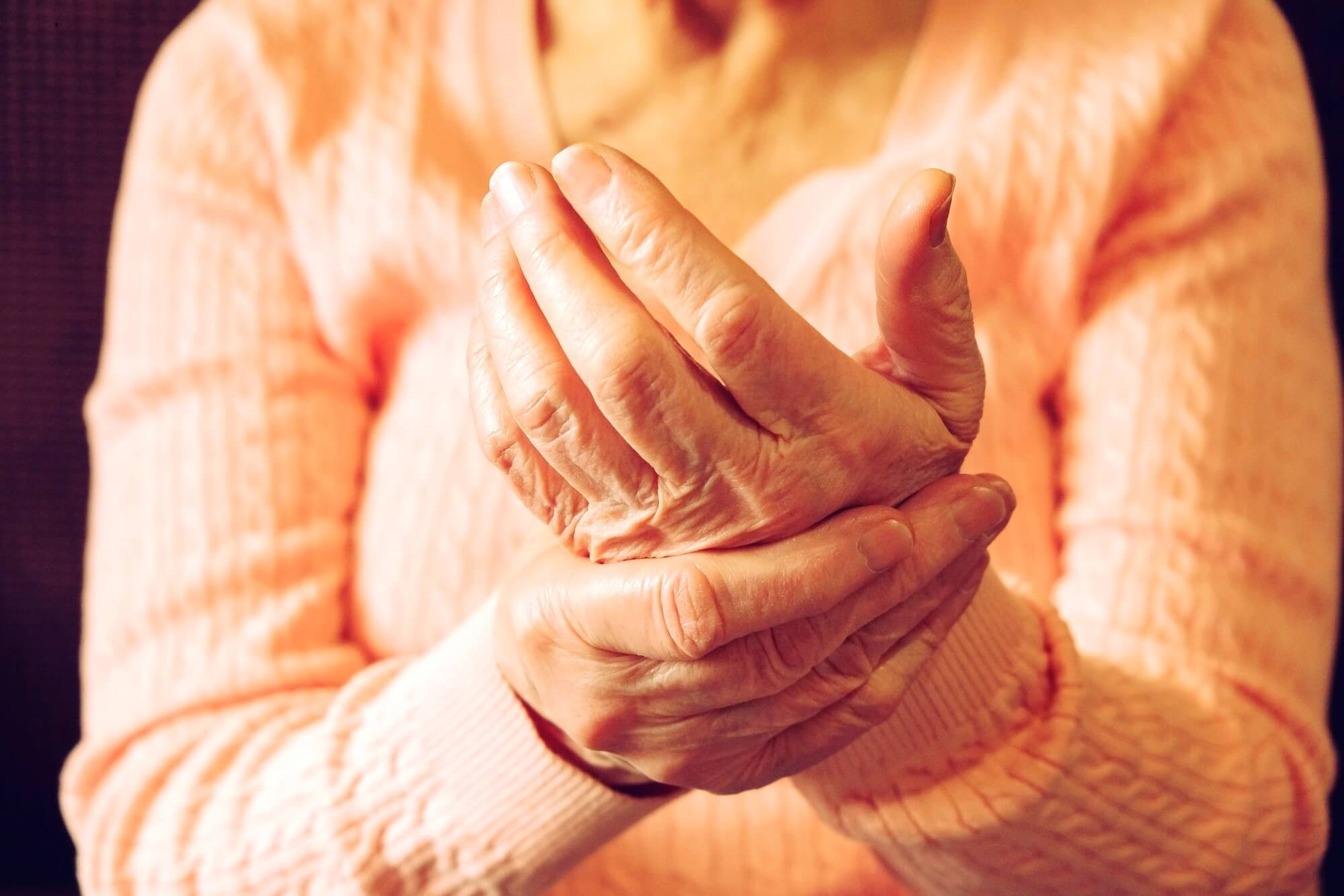 Prevalence of RA-Associated Autoantibodies Not Associated With Erosive Hand Osteoarthritis