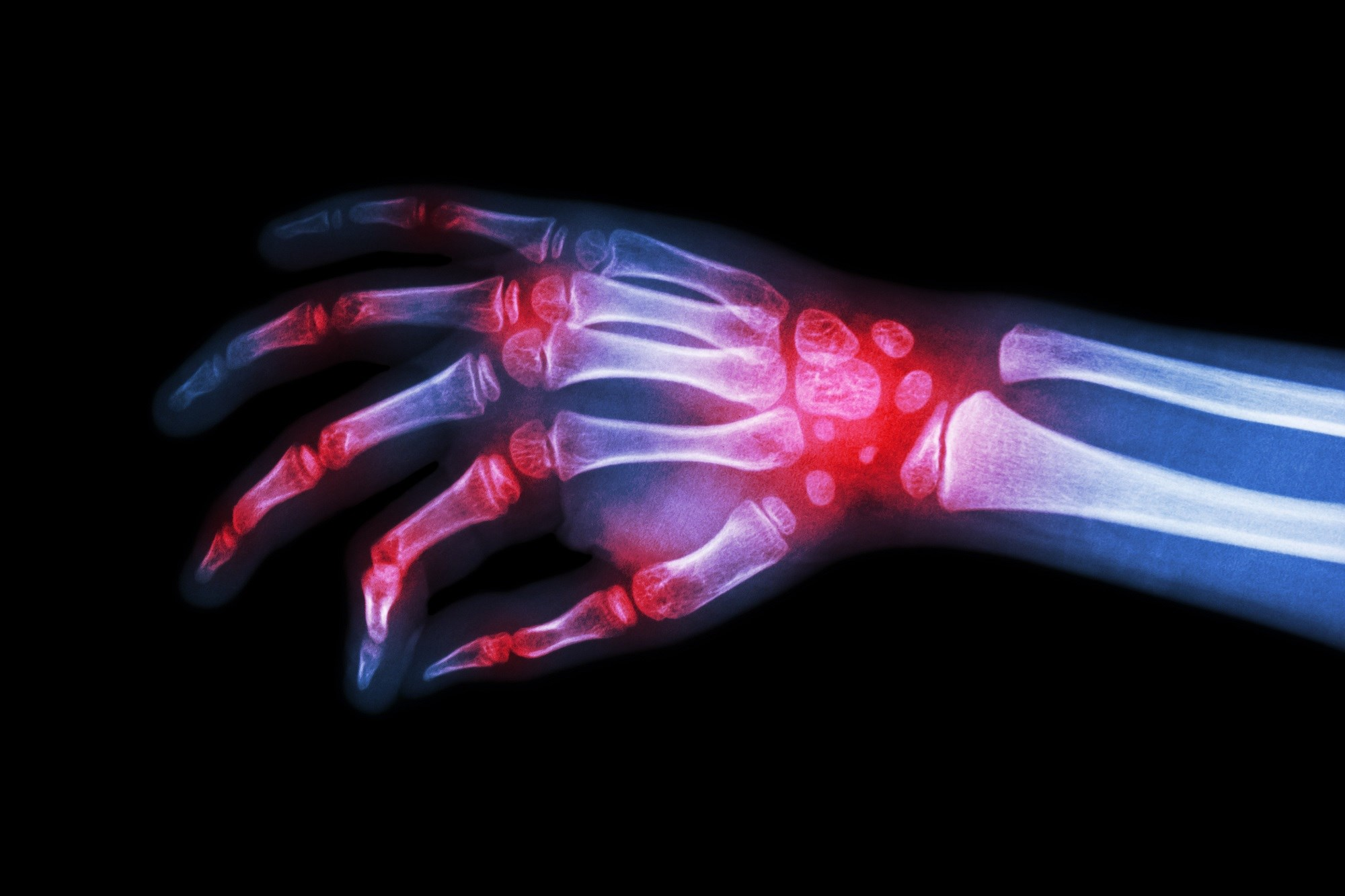Serum sRAGE Correlated With Disease Activity in Rheumatoid Arthritis
