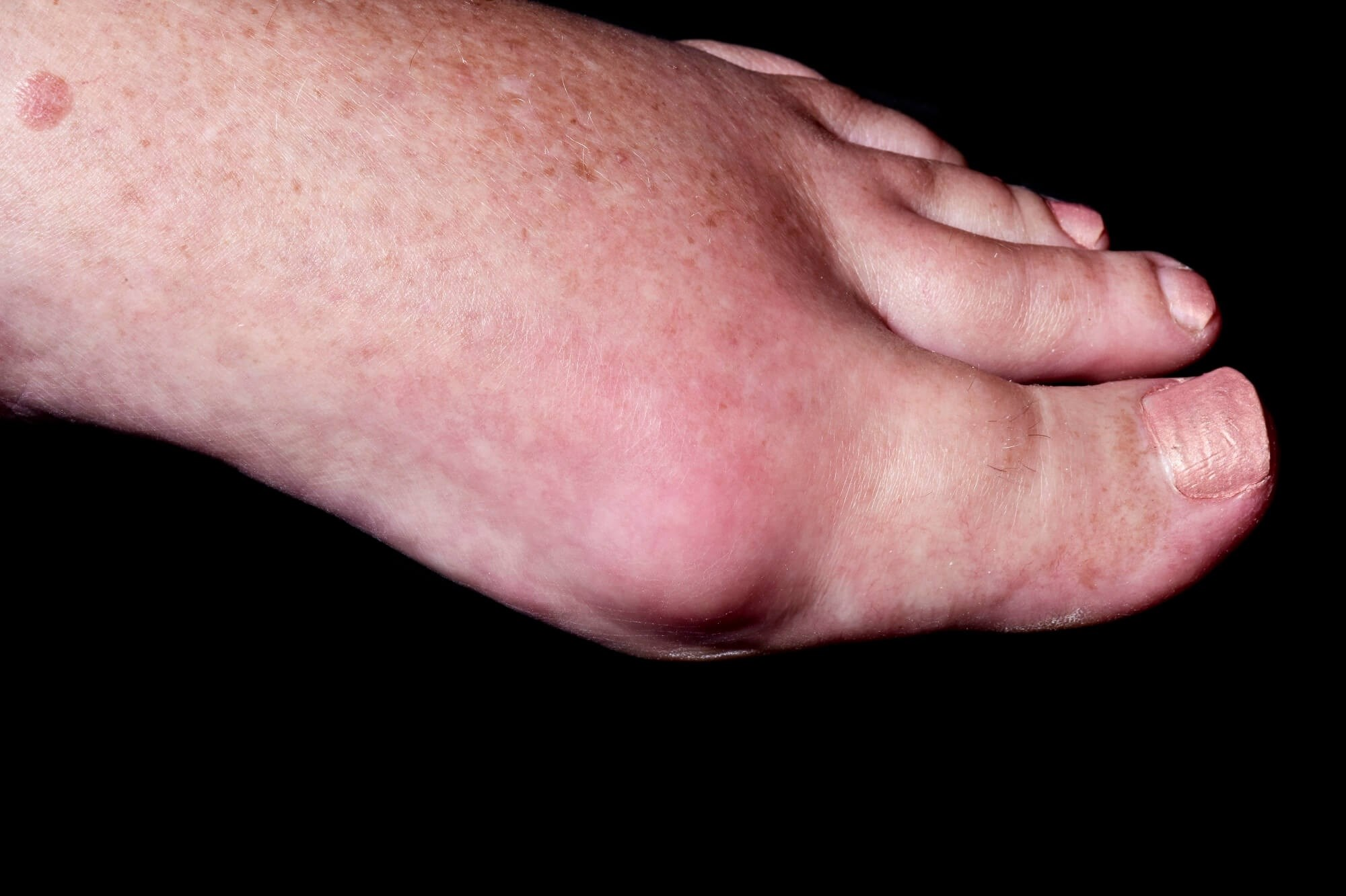 An expert panel evaluated 23 separate statements related to the etiology, diagnosis, and treatment of gout. <i>Credit:DR P. MARAZZI/Science Source</i>