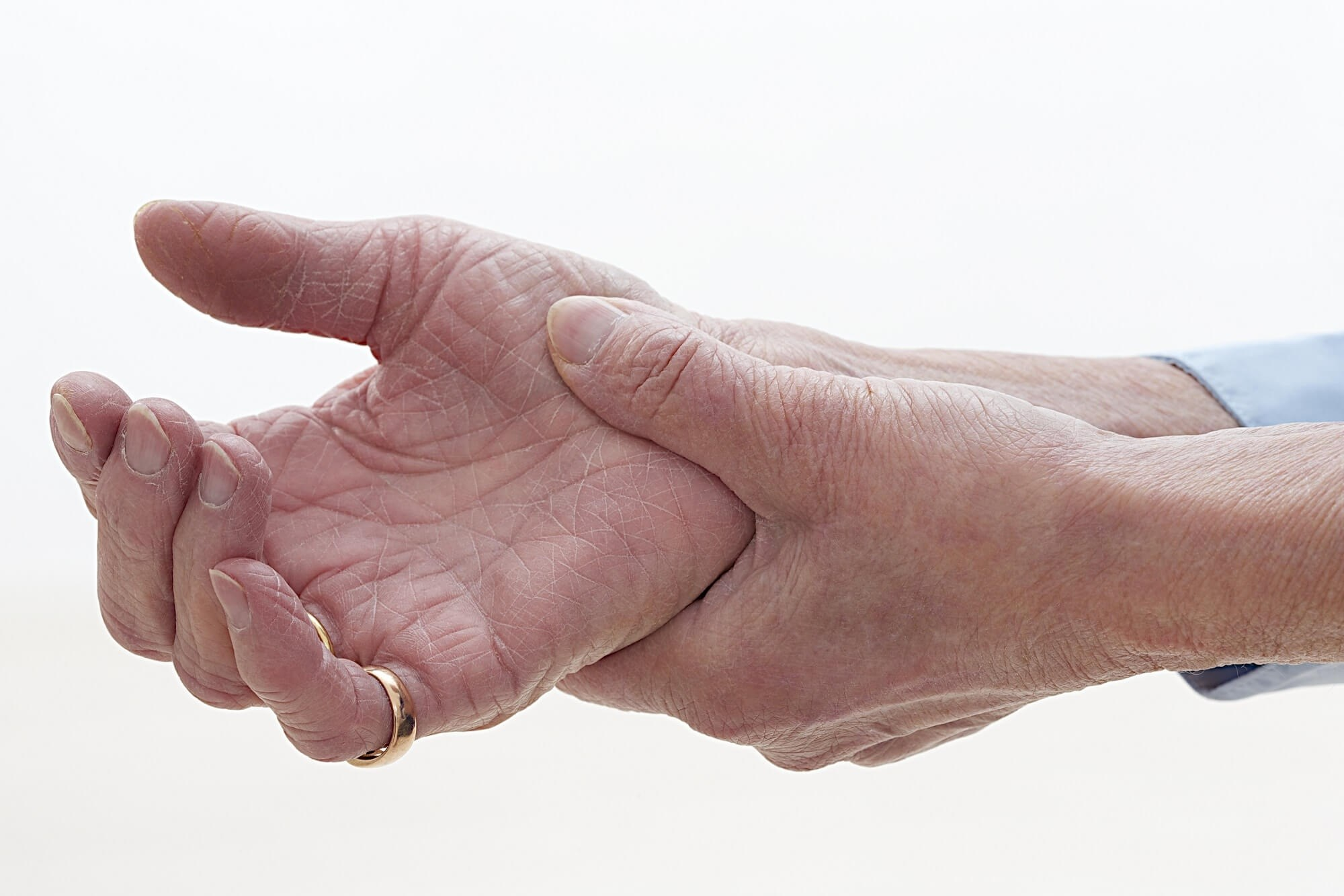 Factors Affecting Hand Function, Disability in Rheumatoid Arthritis