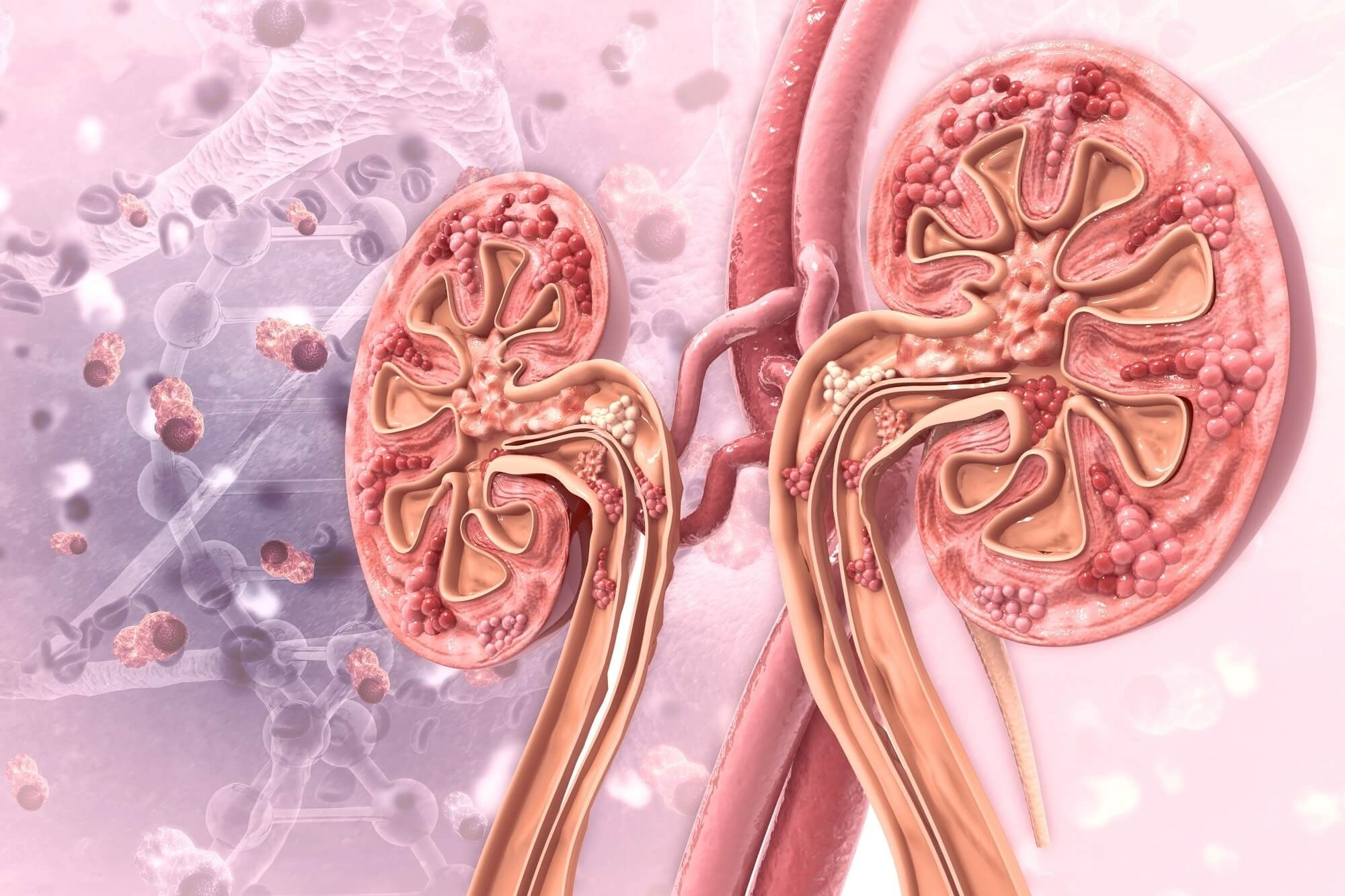 Gout Increases Risk for Chronic Kidney Disease