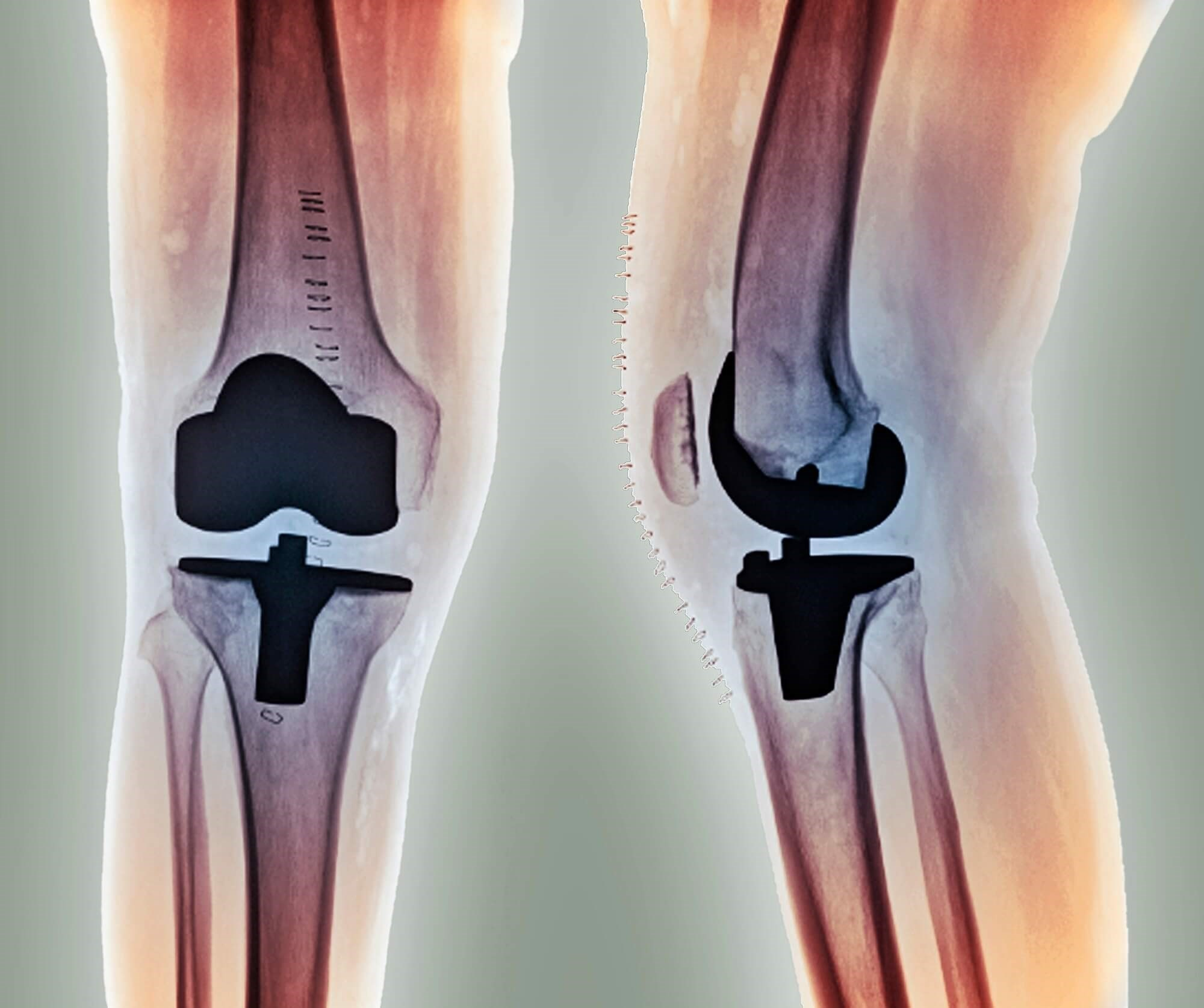 Prediction Models Developed to Predict Risk for Total Hip, Knee Replacements