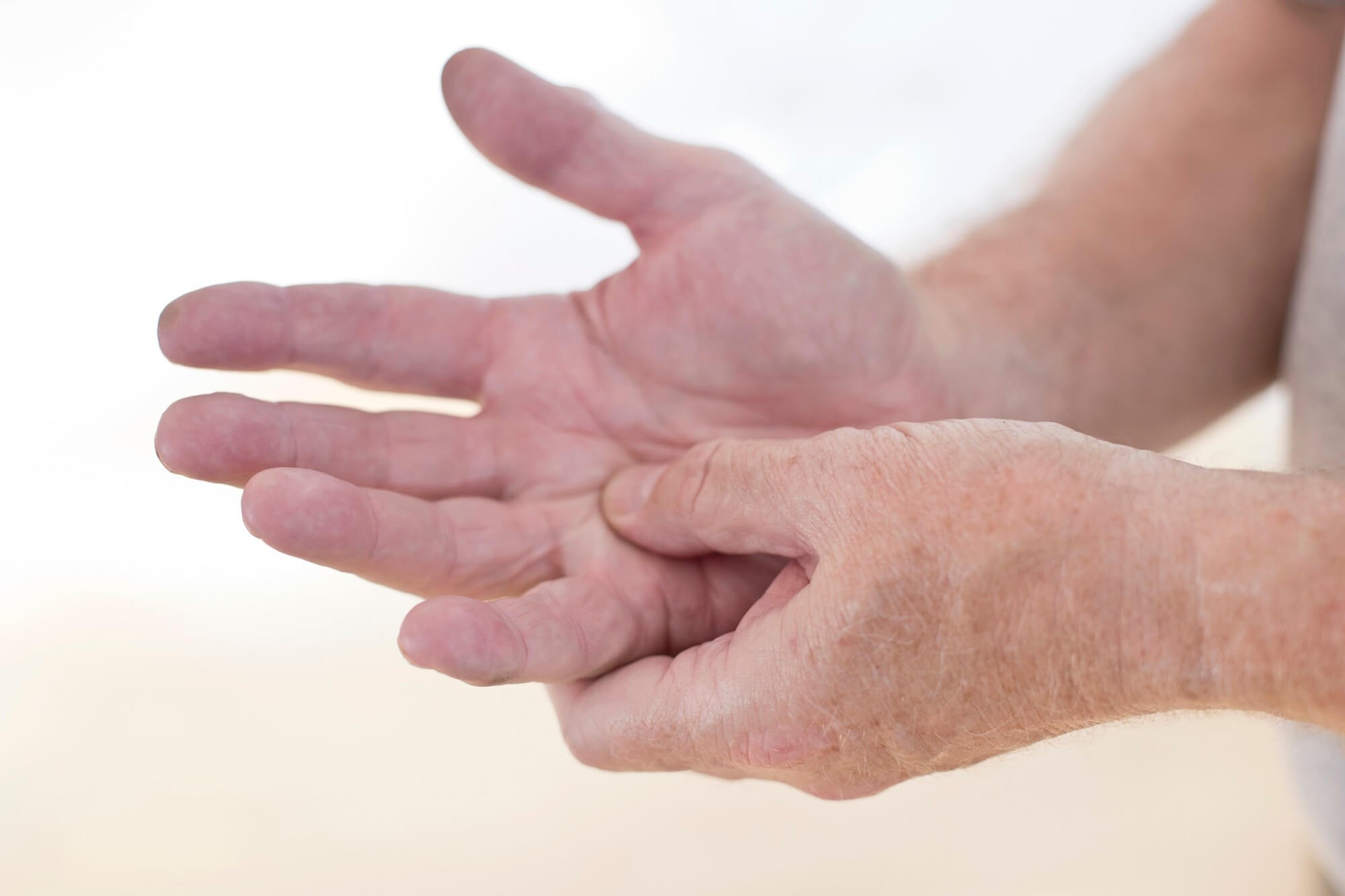 CDC: About 1 in 3 Adults With Prediabetes Has Arthritis