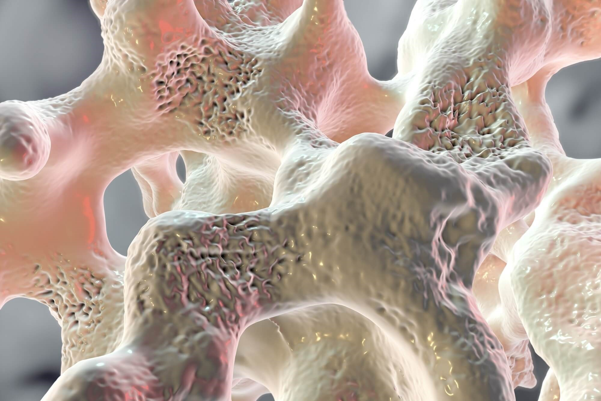 Denosumab Promising for TDT-Induced Osteoporosis Treatment