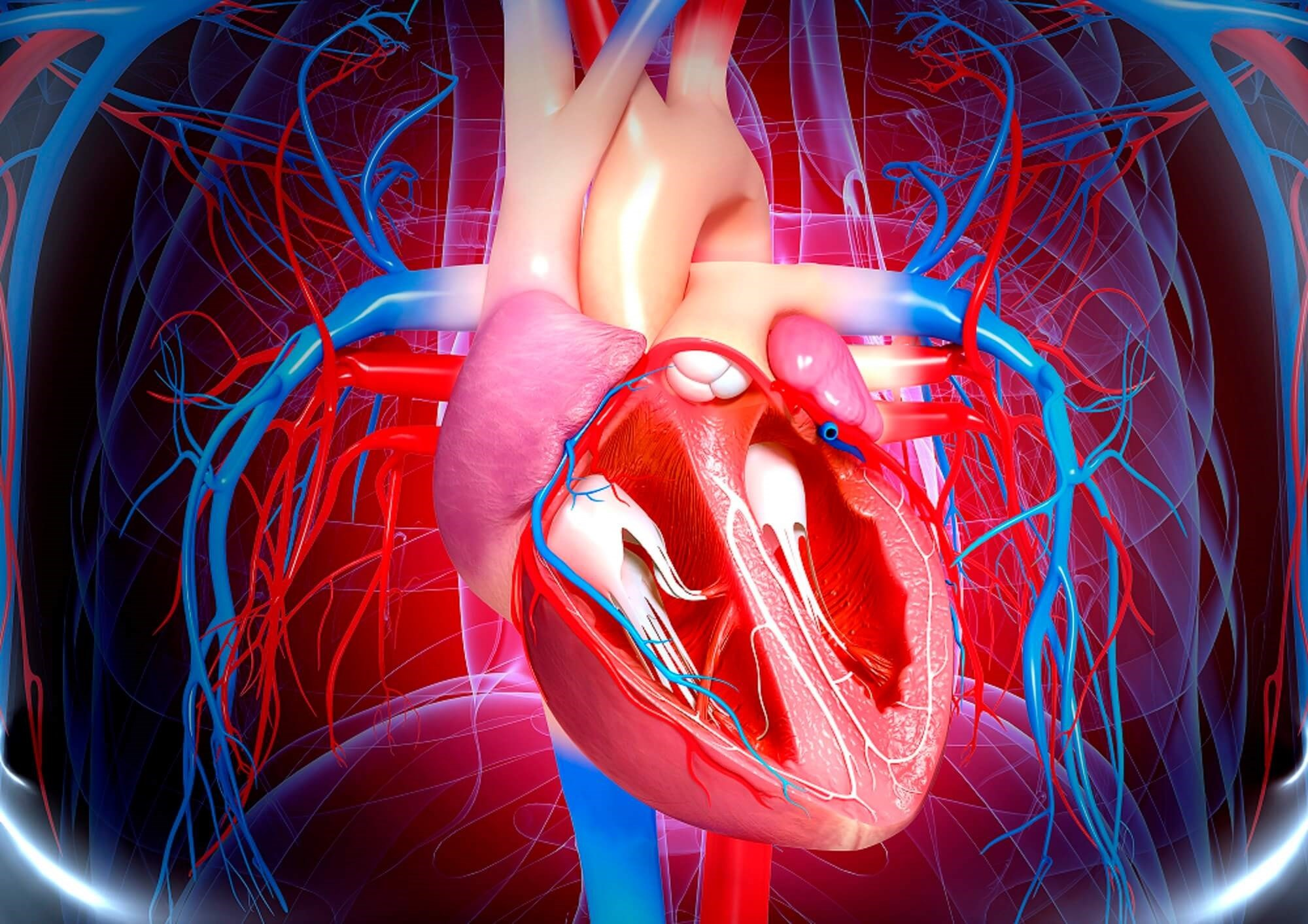 Gout Associated With Worse Outcomes in Obstructive Coronary Artery Disease