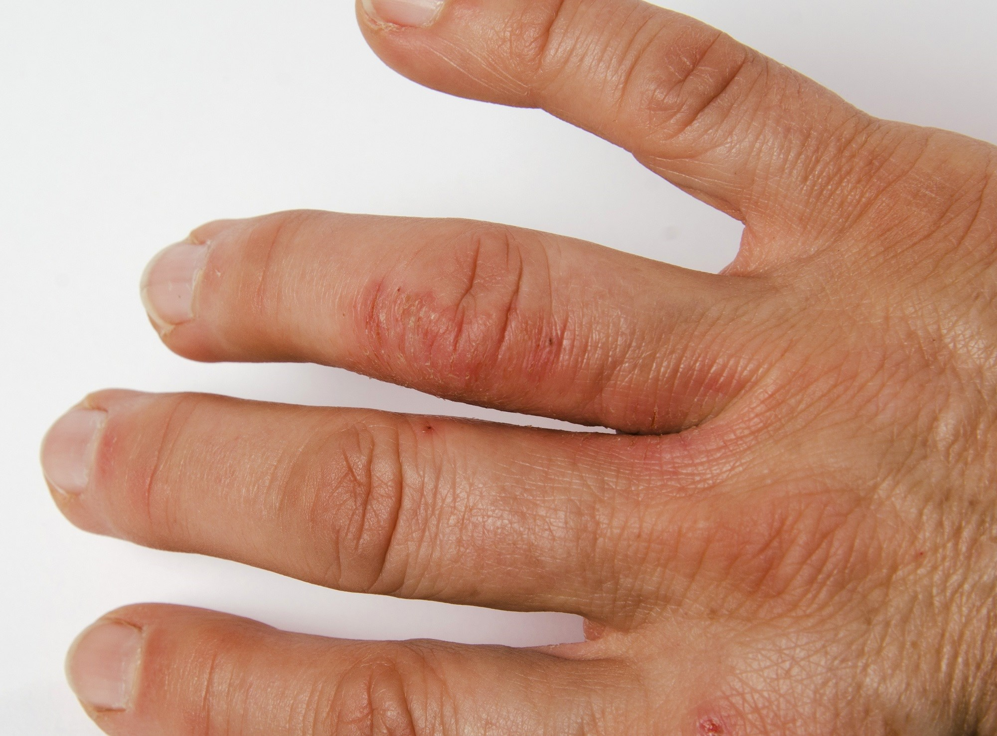New Psoriatic Arthritis Guidelines Recommend TNFi as First-Line Tx Option