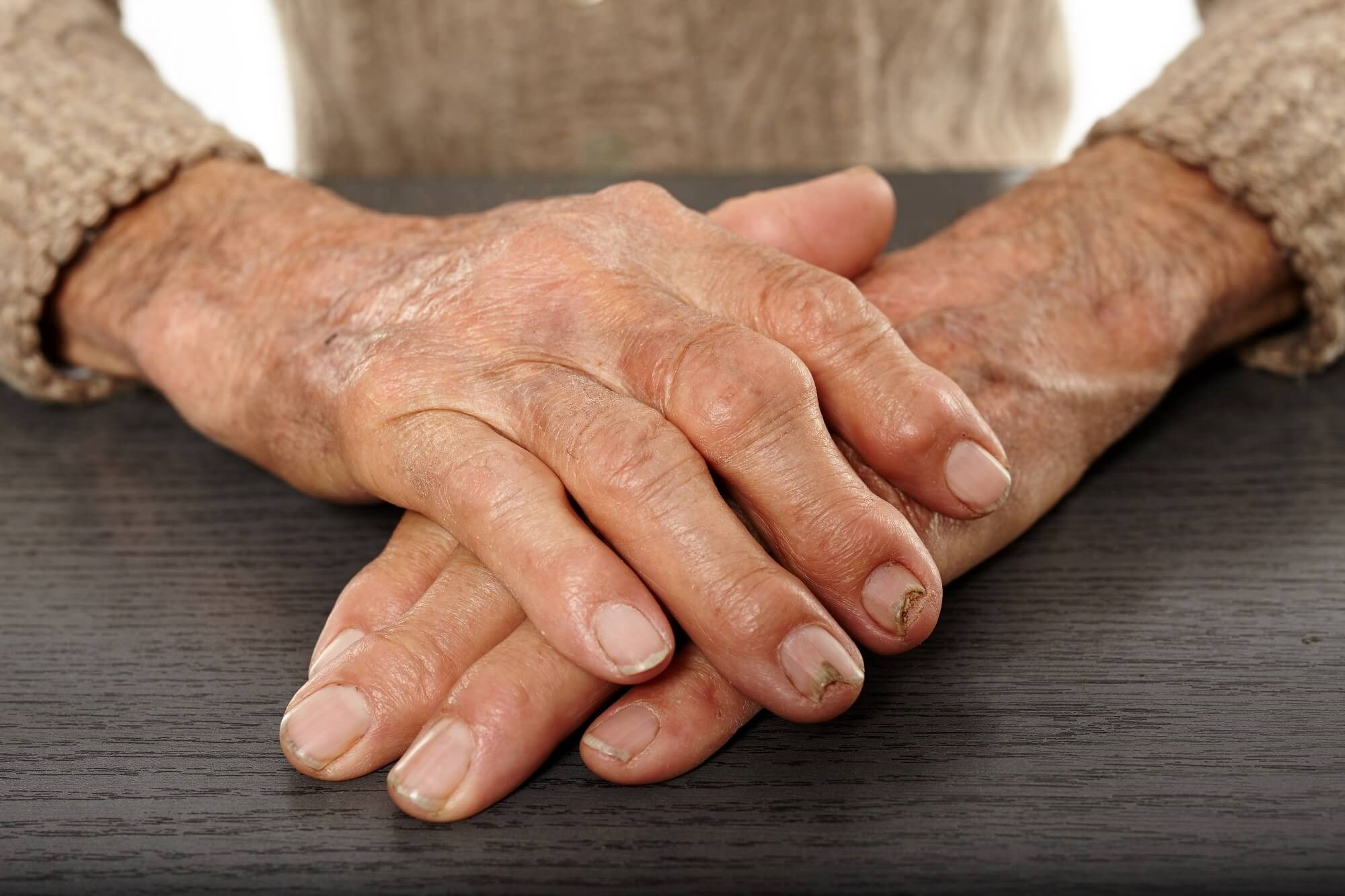 Standard Set of Outcomes Developed for Value-Based Health Care in Inflammatory Arthritis