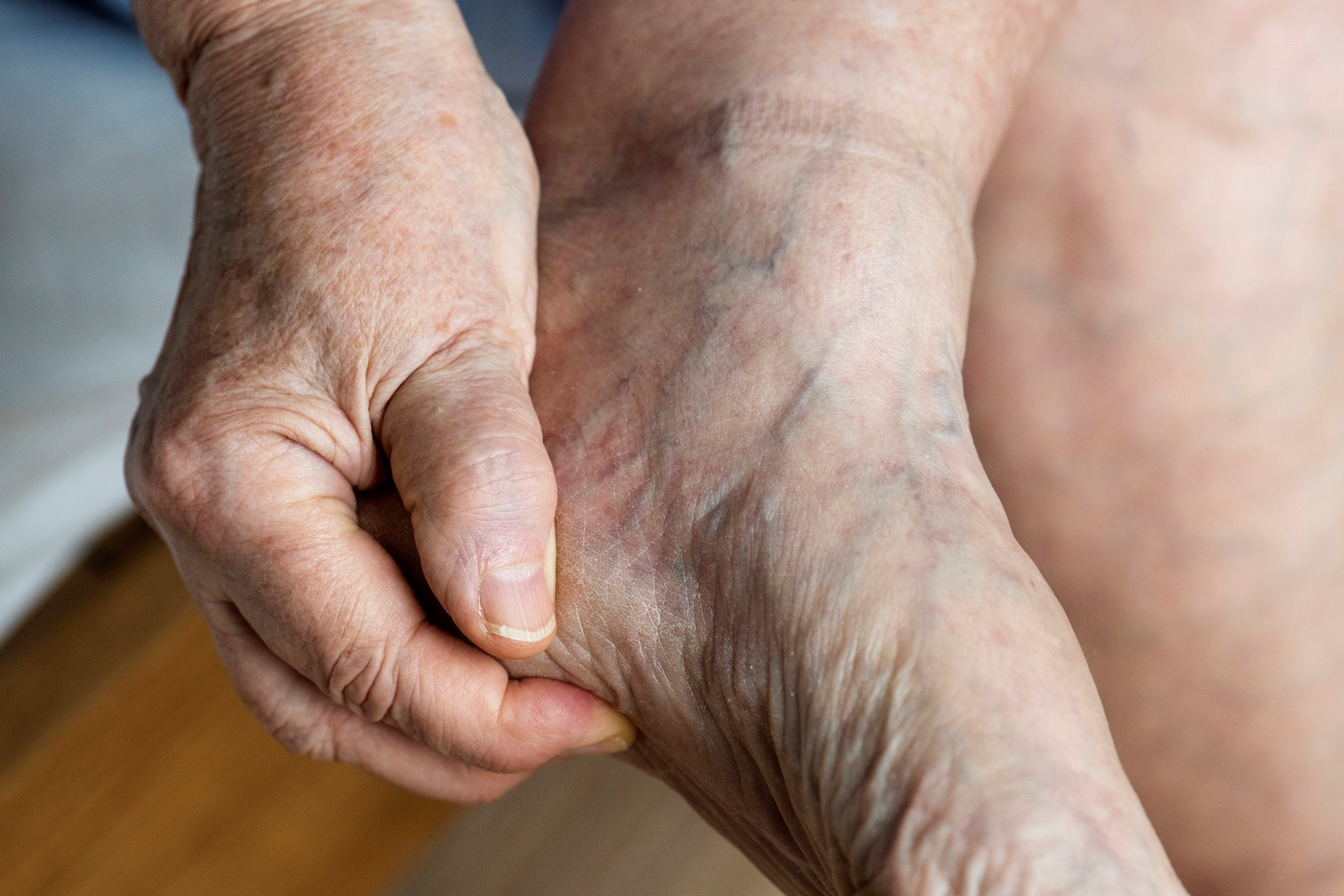 Urate-Lowering Therapy Reduces Non-Episodic Foot Pain in Patients Without Gout Diagnosis