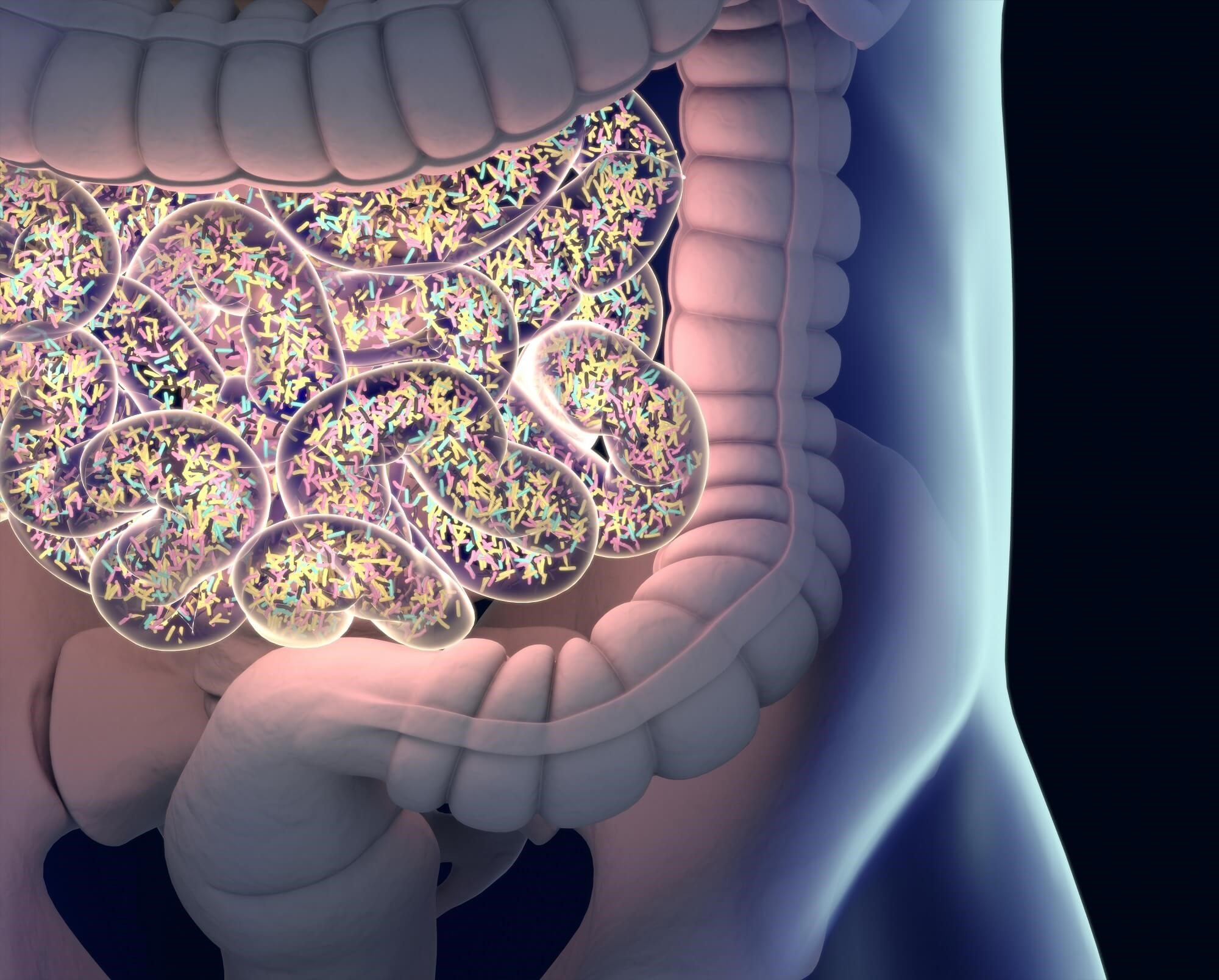 Inflammatory Arthritis and the Gut Microbiome: Do Microbes Hold the Key to New Treatments?