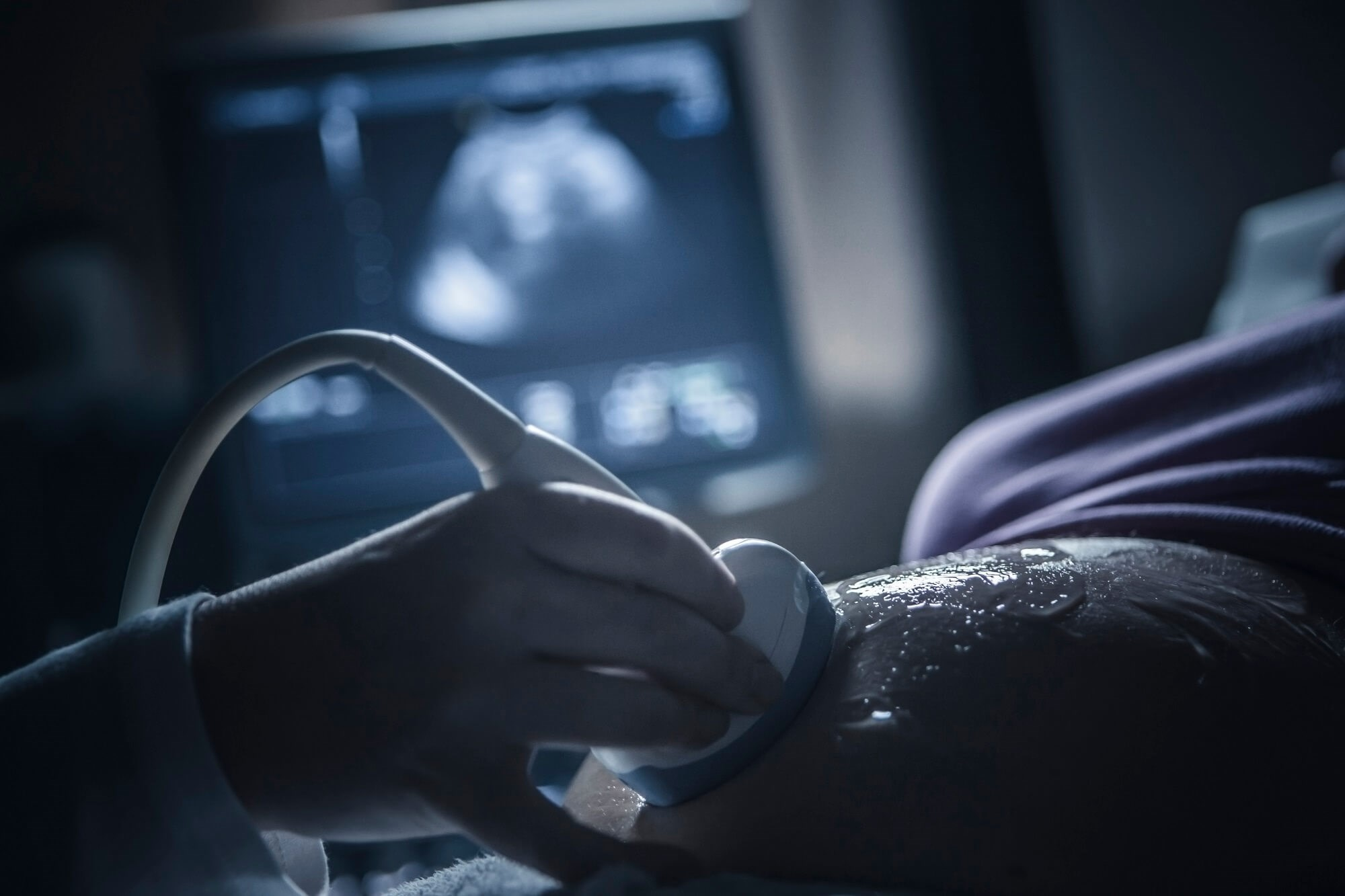 Data highlight the need for new interventions to improve obstetric outcomes in this patient population.