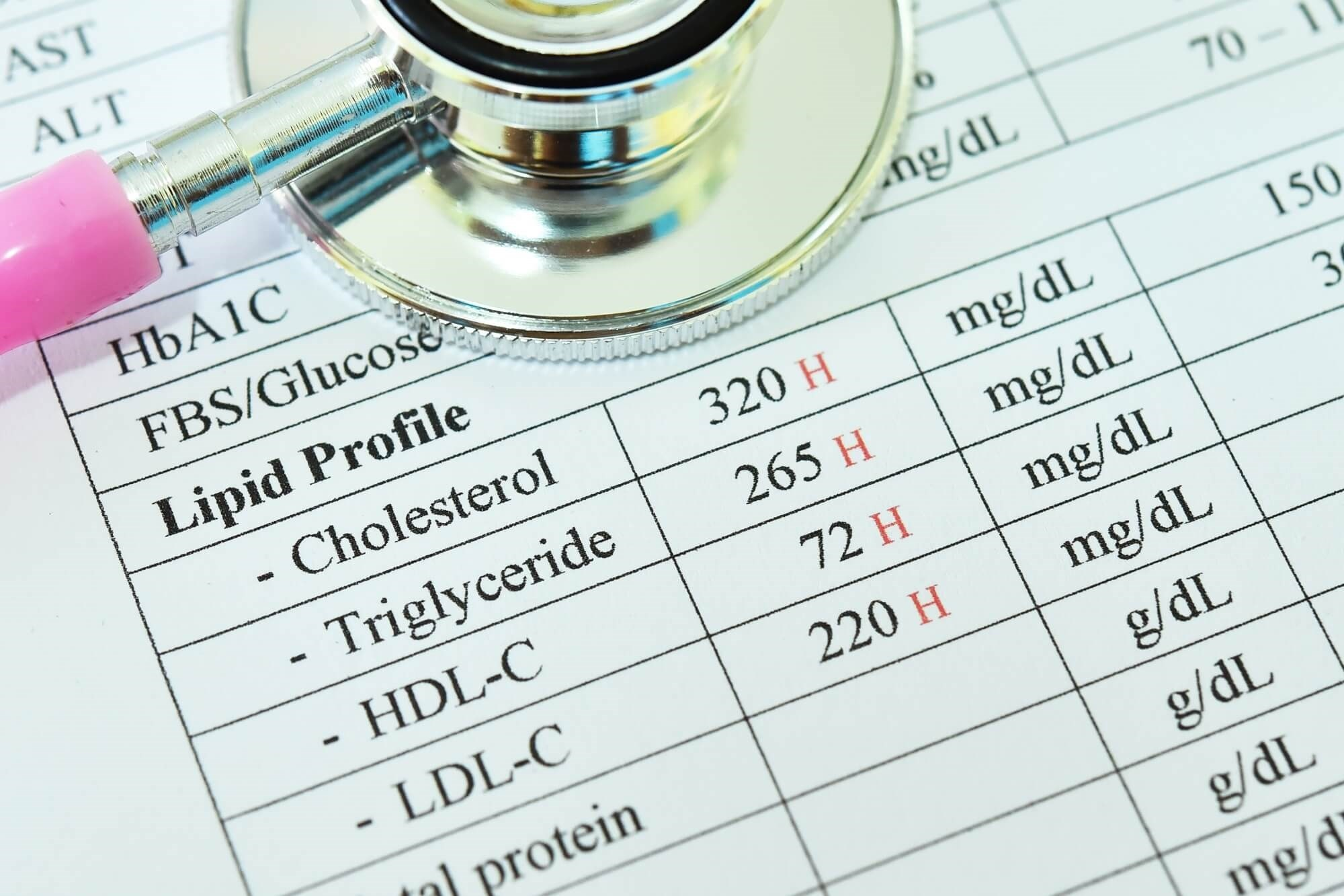 Data show that primary lipid screening rates were suboptimal in patients with RA.