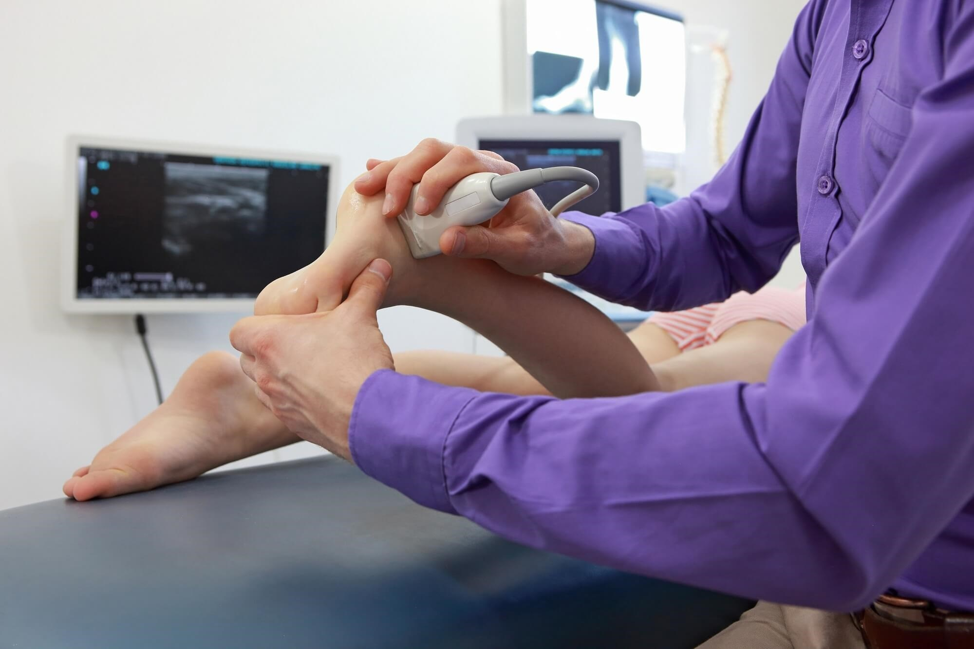 Ultrasound May Be Reliable for Assessing Subtalar Joint Synovitis in Rheumatoid Arthritis