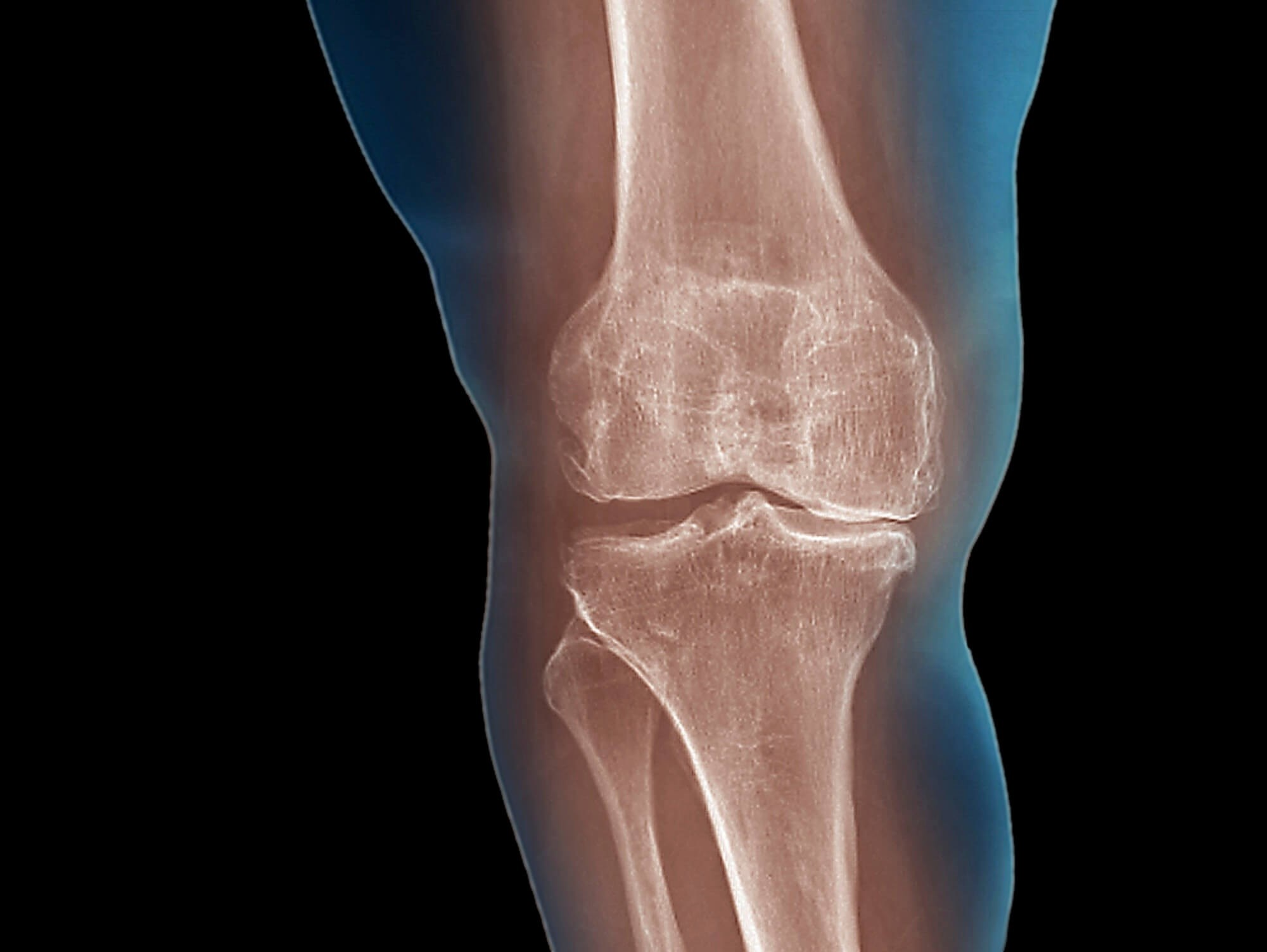 At 24 weeks, improvements seen in pain, function for osteoarthritis patients who did patellar mobilization.