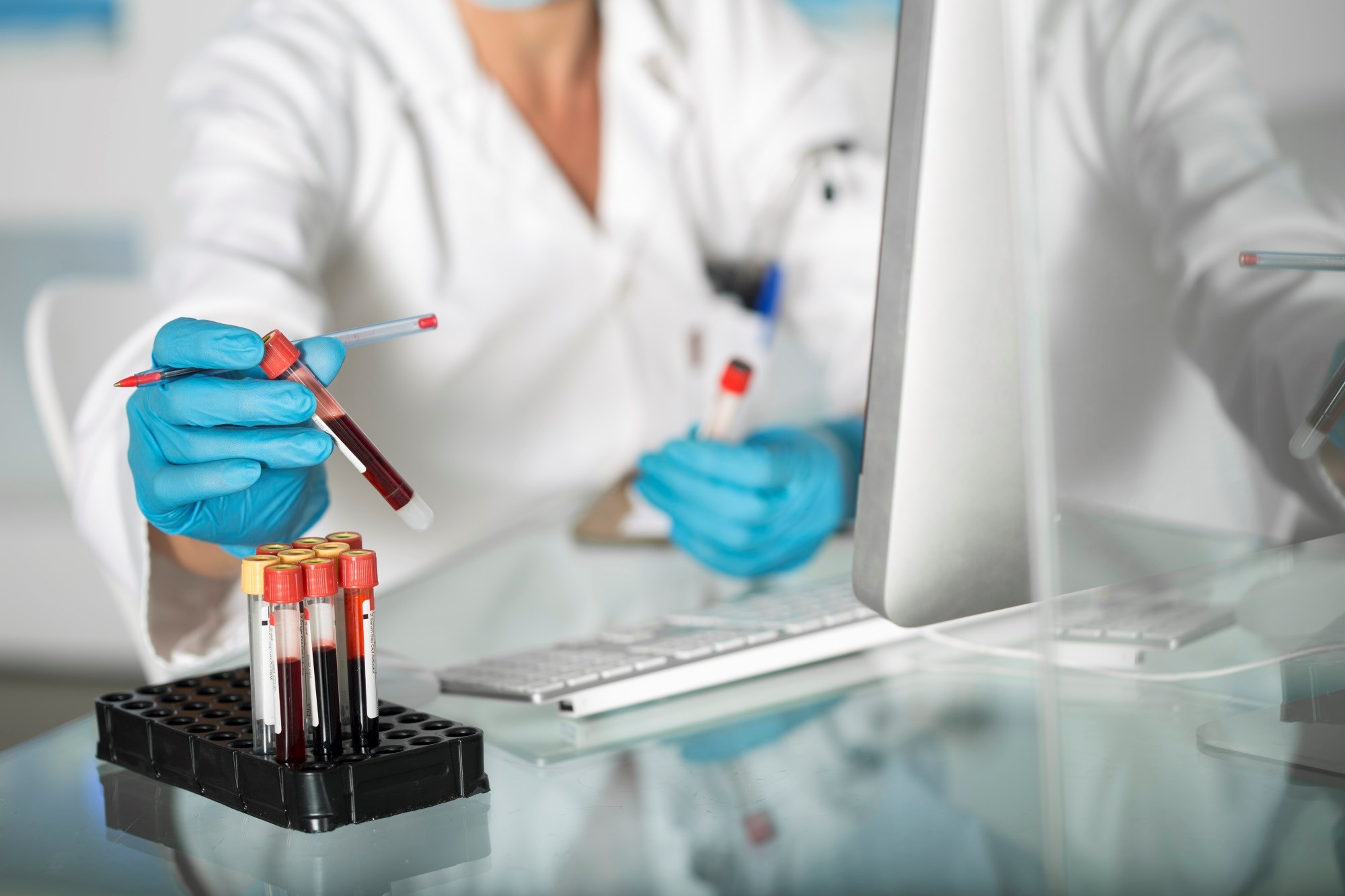Improving RA Diagnosis With Use of Anti-ACPAs