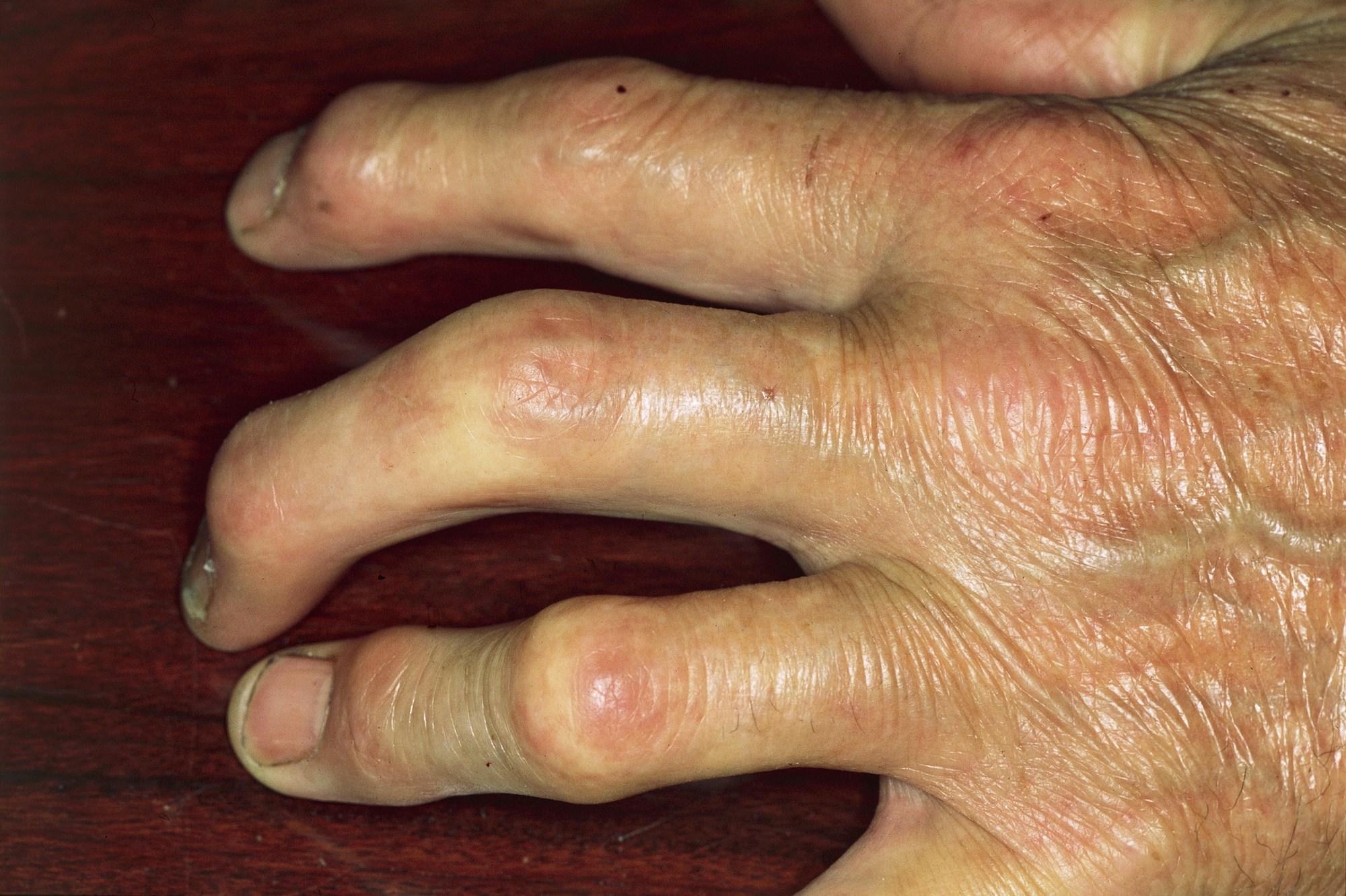 Managing Psoriatic Arthritis: Updated 2018 Recommendations From ACR/NPF