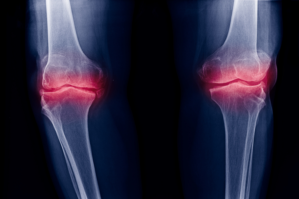 A new injectable material will improve osteoarthritis treatment options