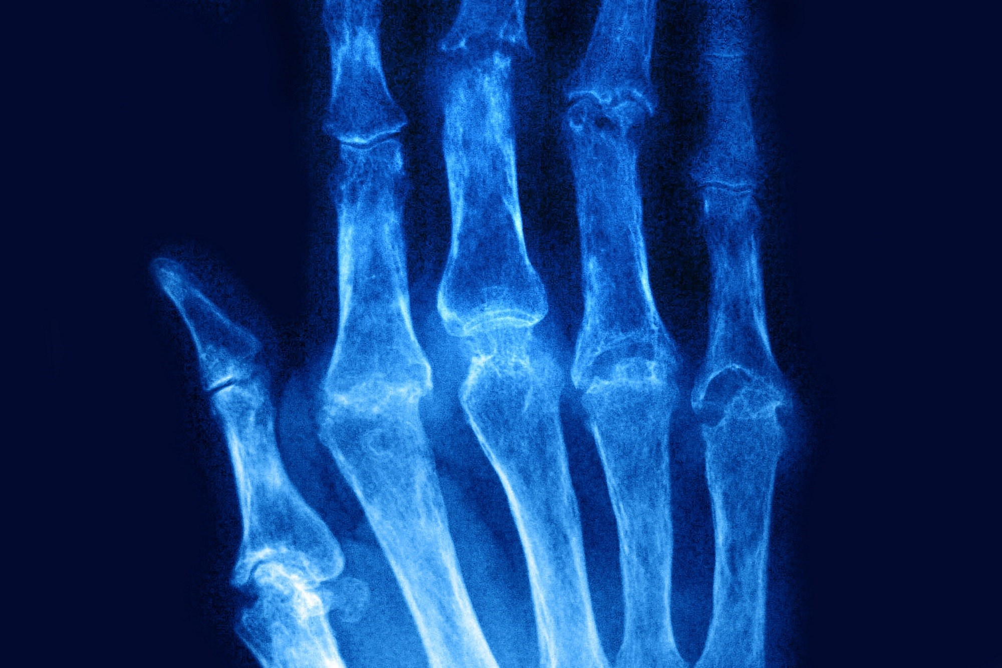 Metacarpal demineralization is an early hallmark of RA that is well suited for detection by automated DXR, which offers excellent sensitivity and specificity. <i>Photo Credit: BSIP/CAVALLINI JAMES</i>