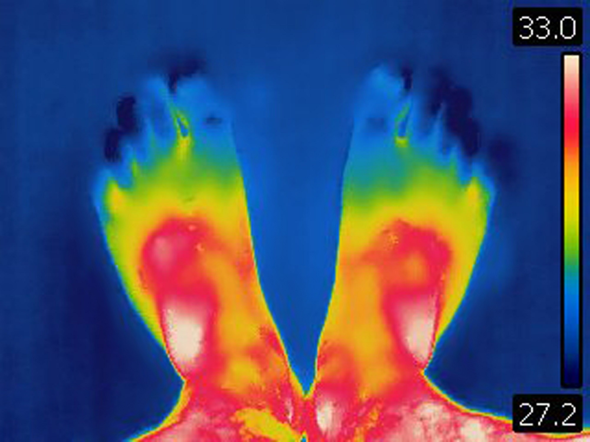 Infrared Thermal Imaging Shows Inflammation in Chronic Nonbacterial Osteomyelitis