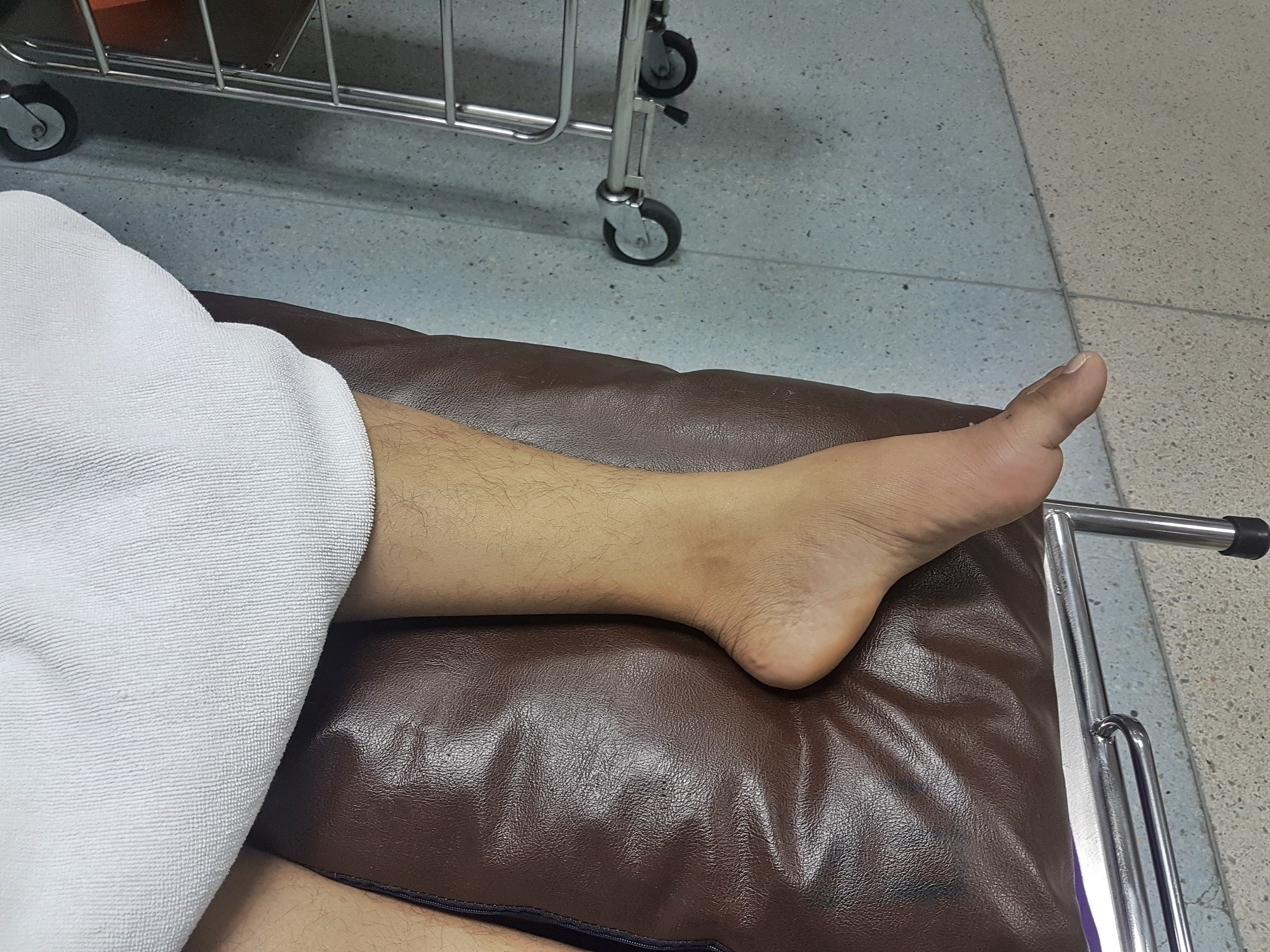 The factors most significantly associated with bone erosion were duration of gout, age, synovial hypertrophy, and presence and number of tophi.