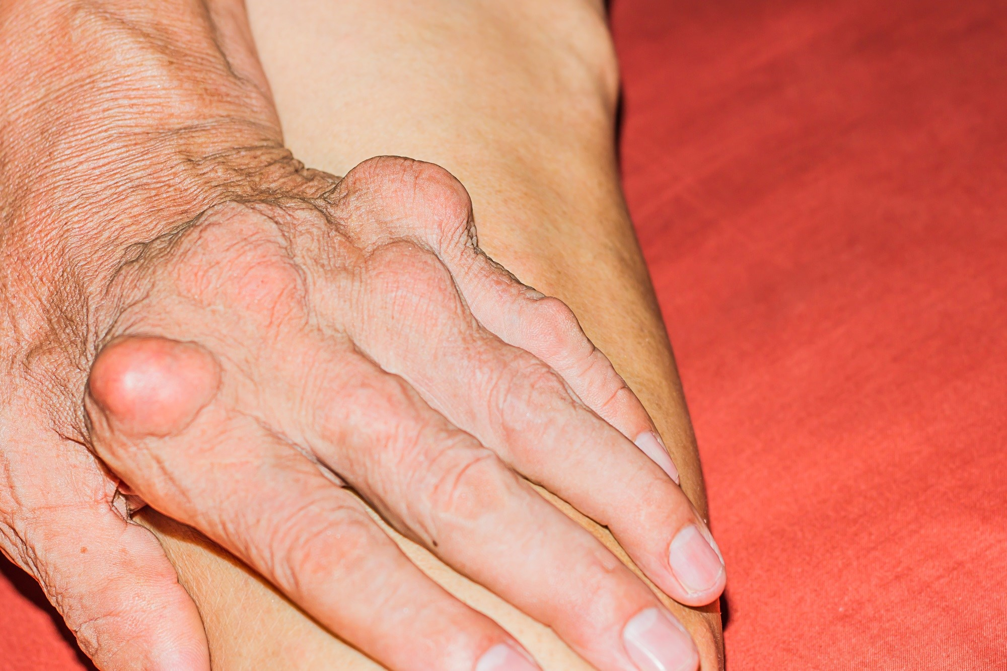 Anakinra May Be Effective for Treatment of Acute Gout Flares