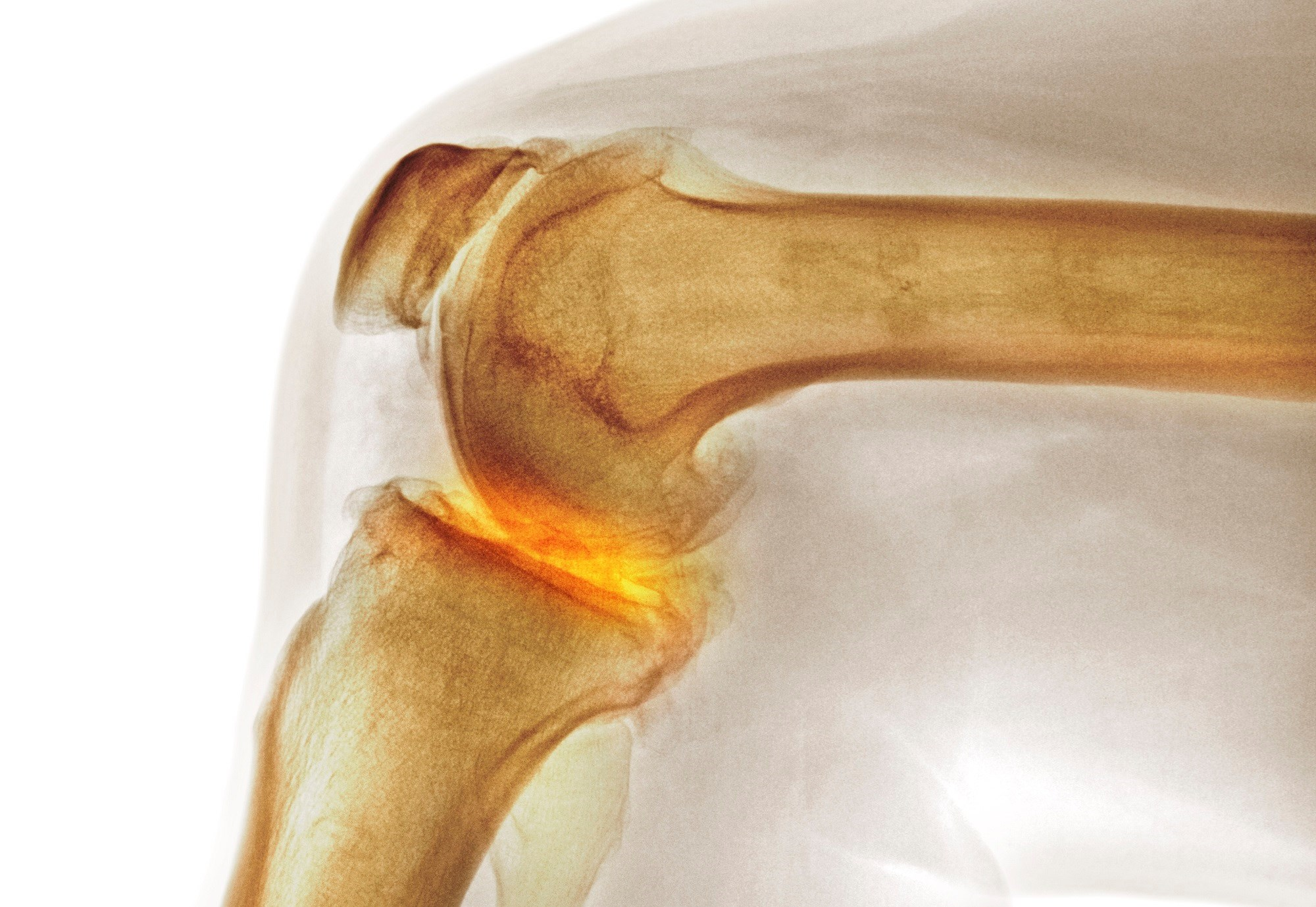 Hormone Therapy Linked to Reduced Symptomatic Knee OA in Postmenopausal Women