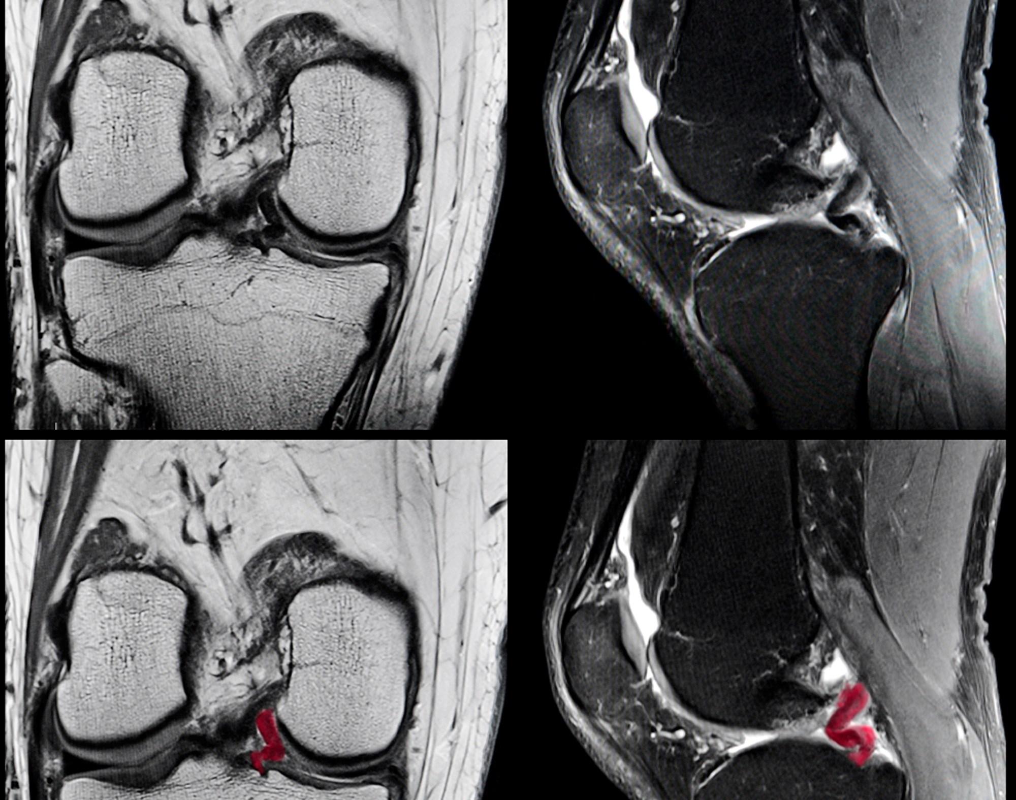 Researchers evaluated patients for destabilizing meniscal tears, miscellaneous pathology, meniscal damage, bone marrow lesions, and damage to cartilage.