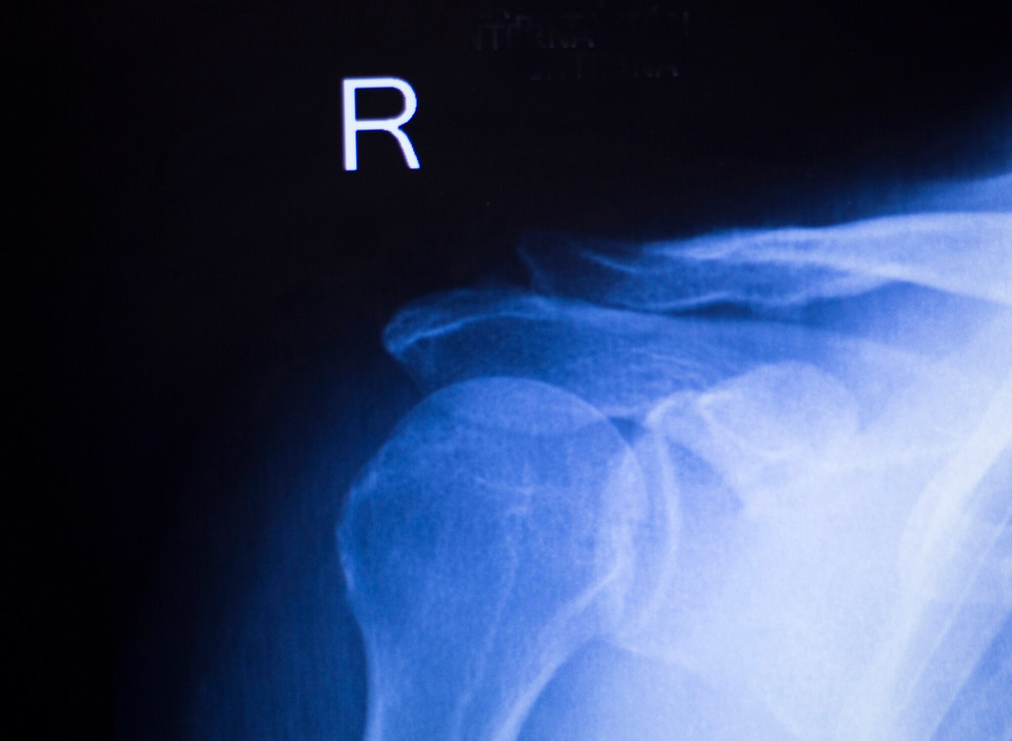 Upper Limb Joint Replacements Decreasing Among Patients With RA