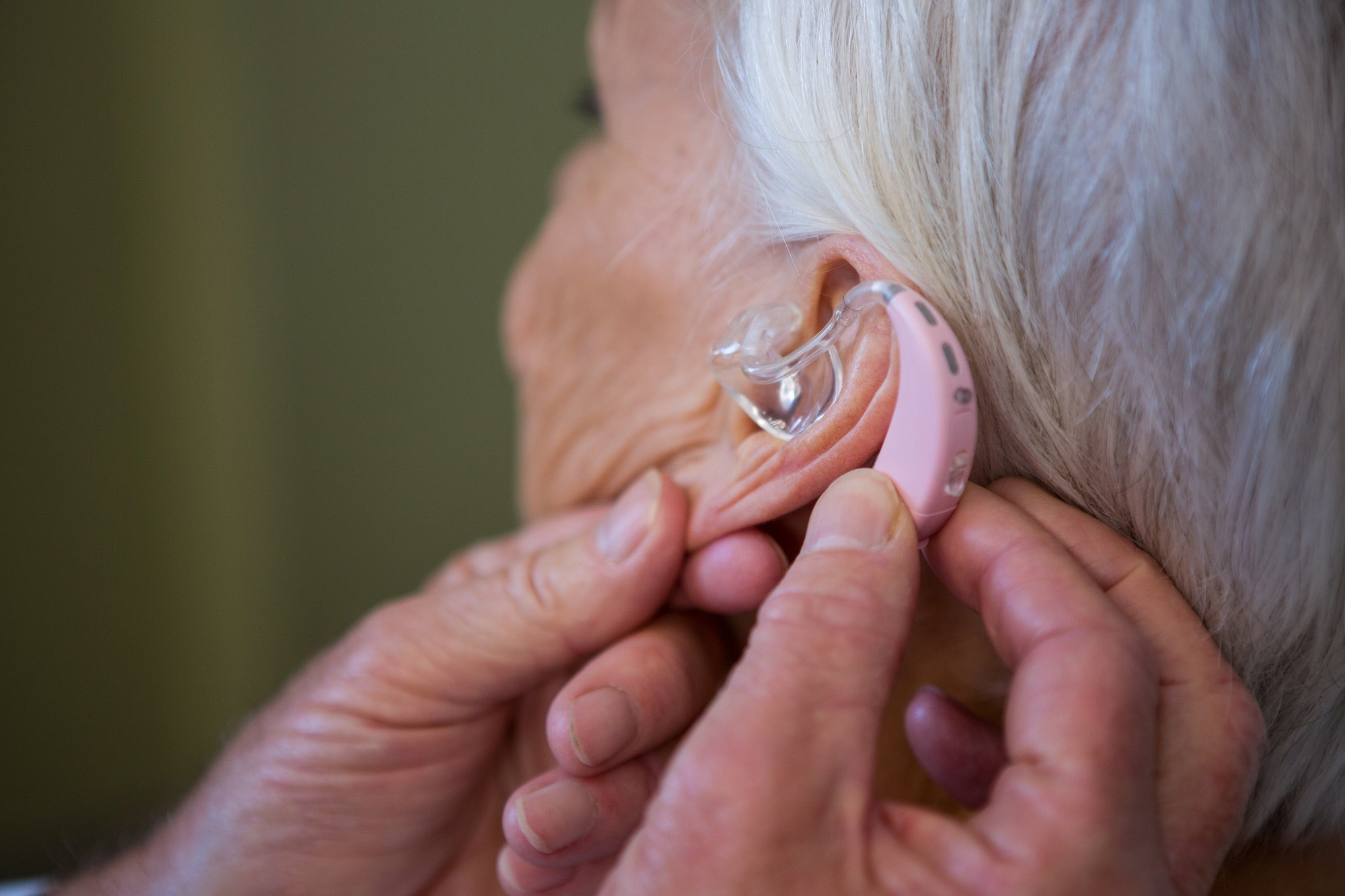 Psoriatic arthritis was independently associated with a significantly increased risk of hearing impairment.