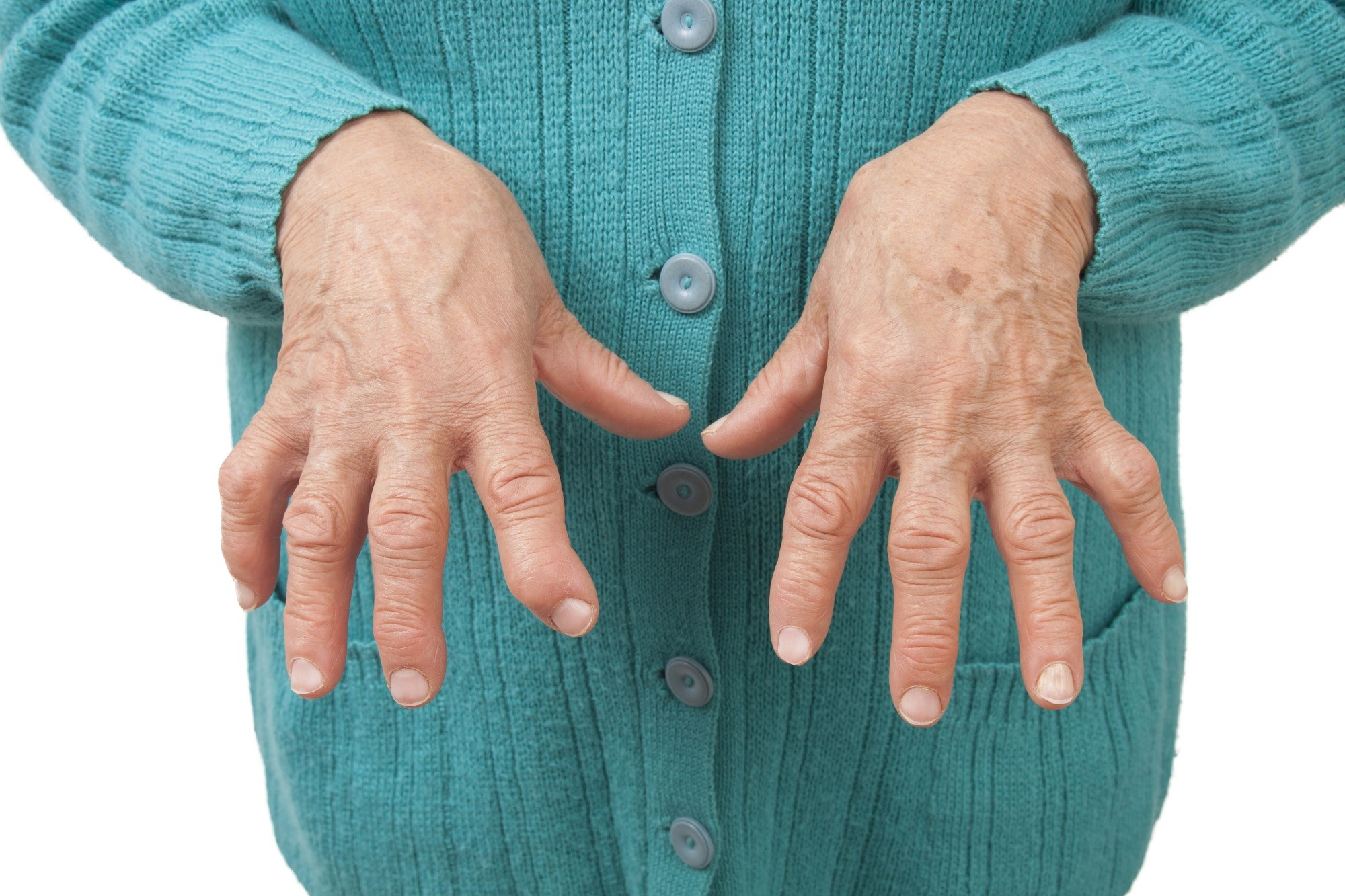 Clinical, Radiographic Benefits of Tofacitinib Sustained for 2 Years in Rheumatoid Arthritis