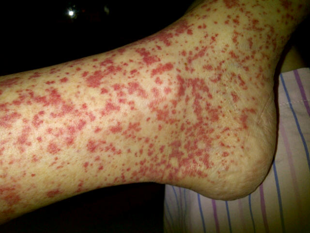 Image result for Vasculitis